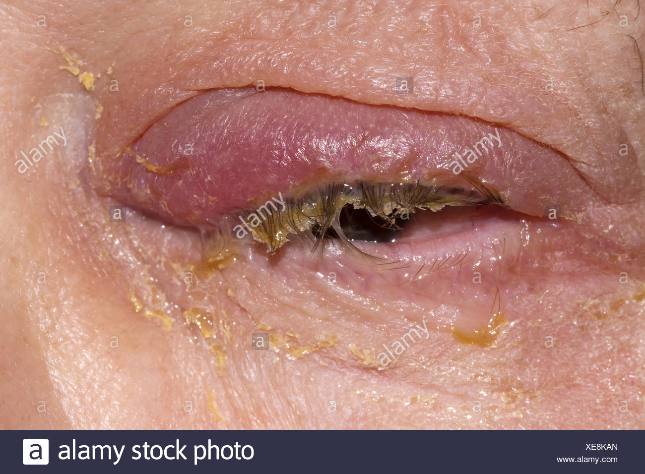 Infection Photo Stock