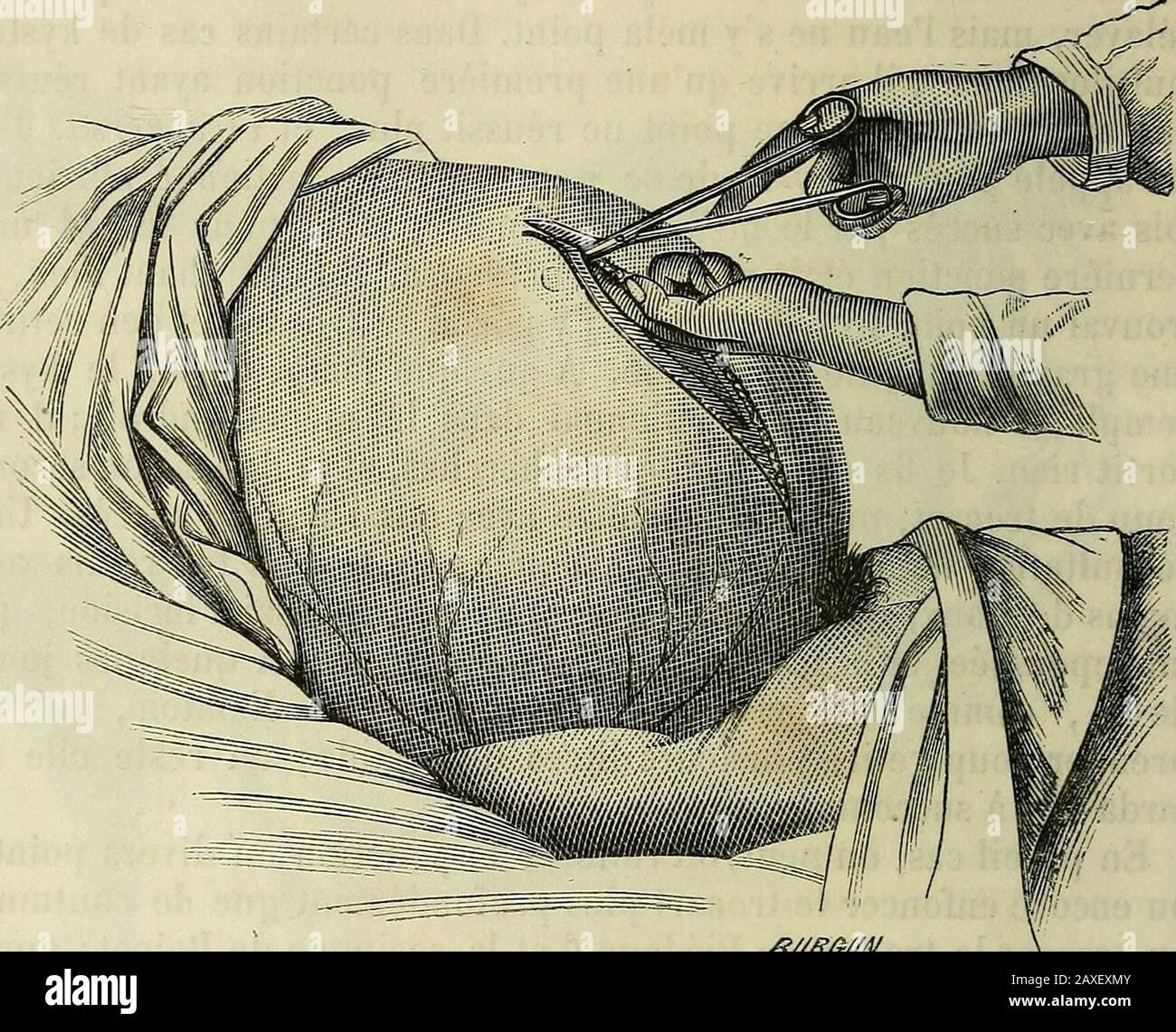 Manuel de médecine opératoire . tant un tra-vail dinflammation adhésive ou refurtive, par les injection;2° en les faisant suppurer ; 3 en enlevant le kyste lui-même. Première métJiode. Iniezioni. Boinet est le Premier quiait tenté la cure des kystes ovariques par les injection iodées ; etelles sont restées longtemps adoptées. Le procédé est très-simple.On fait la ponction à lordinaire, on évacue tout le liquide; et parla canule on injectte immédiatement de 100 à 200 grams de 34-2 OPÉRAZIONI SPÉCIALES. Teinture diodurméée langée deau dans devses impressions.Lainjection laissée à Foto Stock