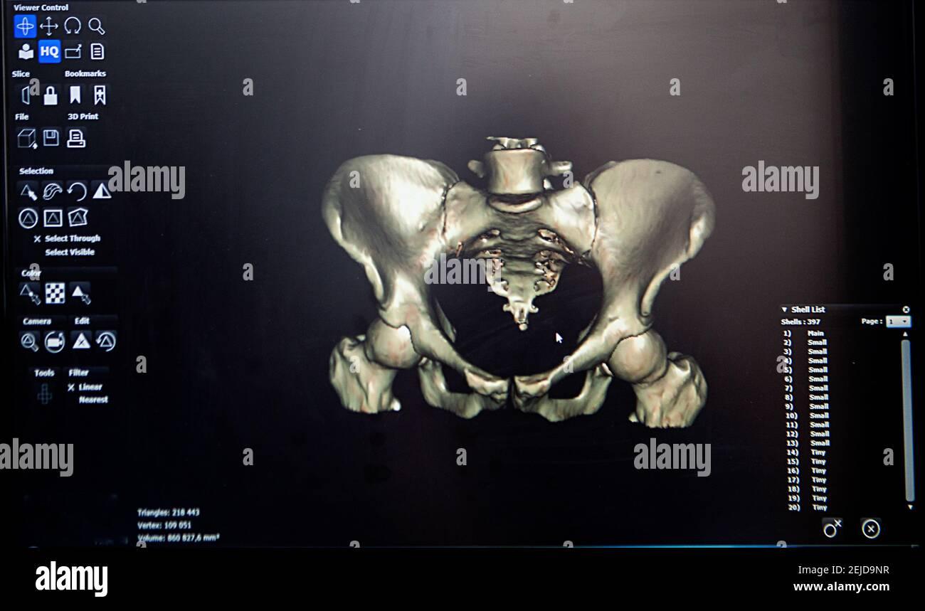 Ricostruzione 3D da un'immagine TC del bacino di un paziente per la stampa 3D personalizzata. Foto Stock