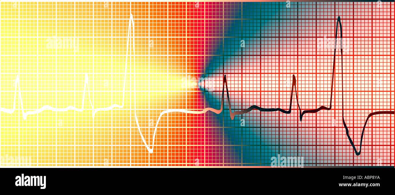 Vista astratta di elettrocardiogramma ECG concept Immagini Stock