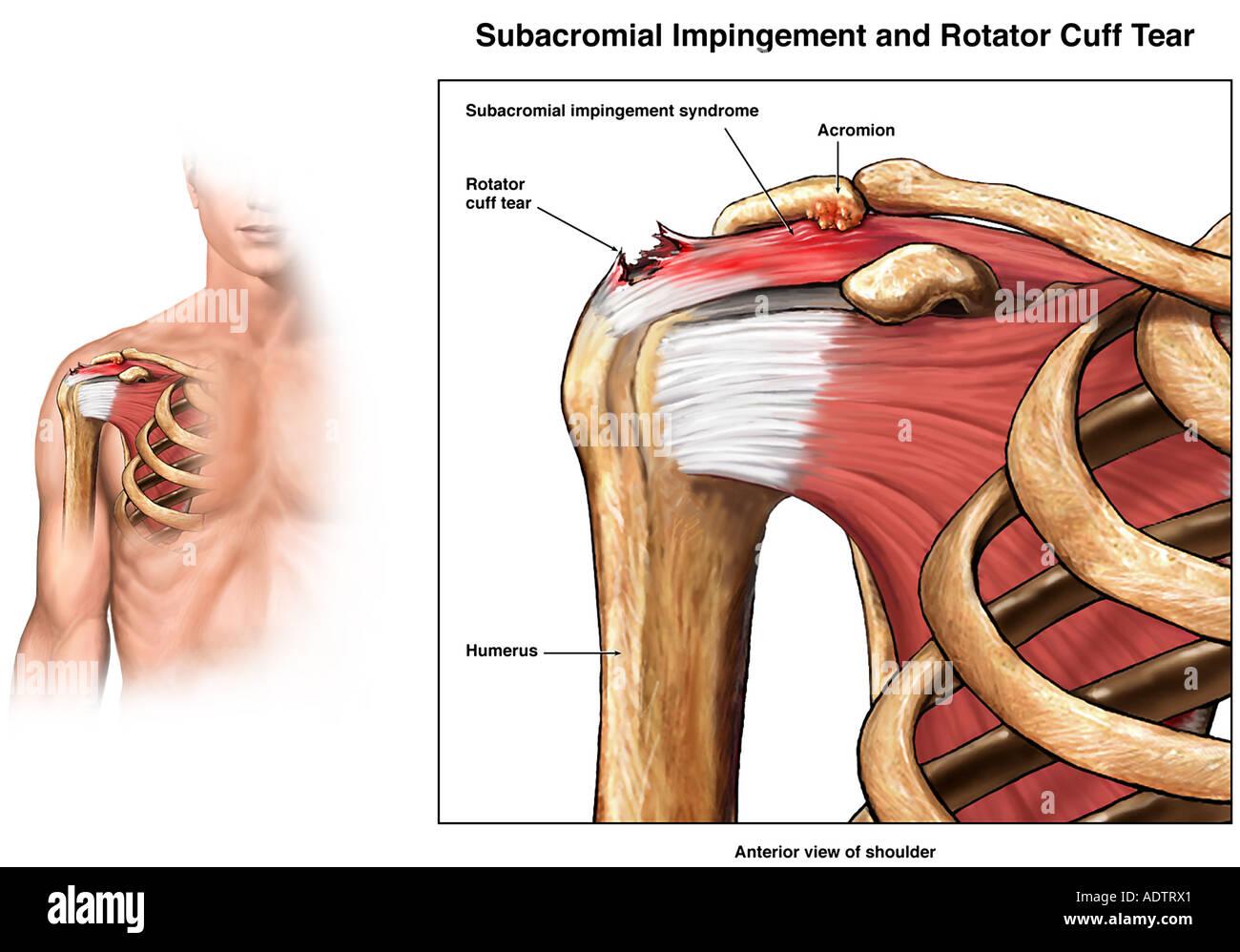 Subacromial Impingement e della cuffia dei rotatori lesione di strappo della  spalla Immagini Stock fd03e5778350
