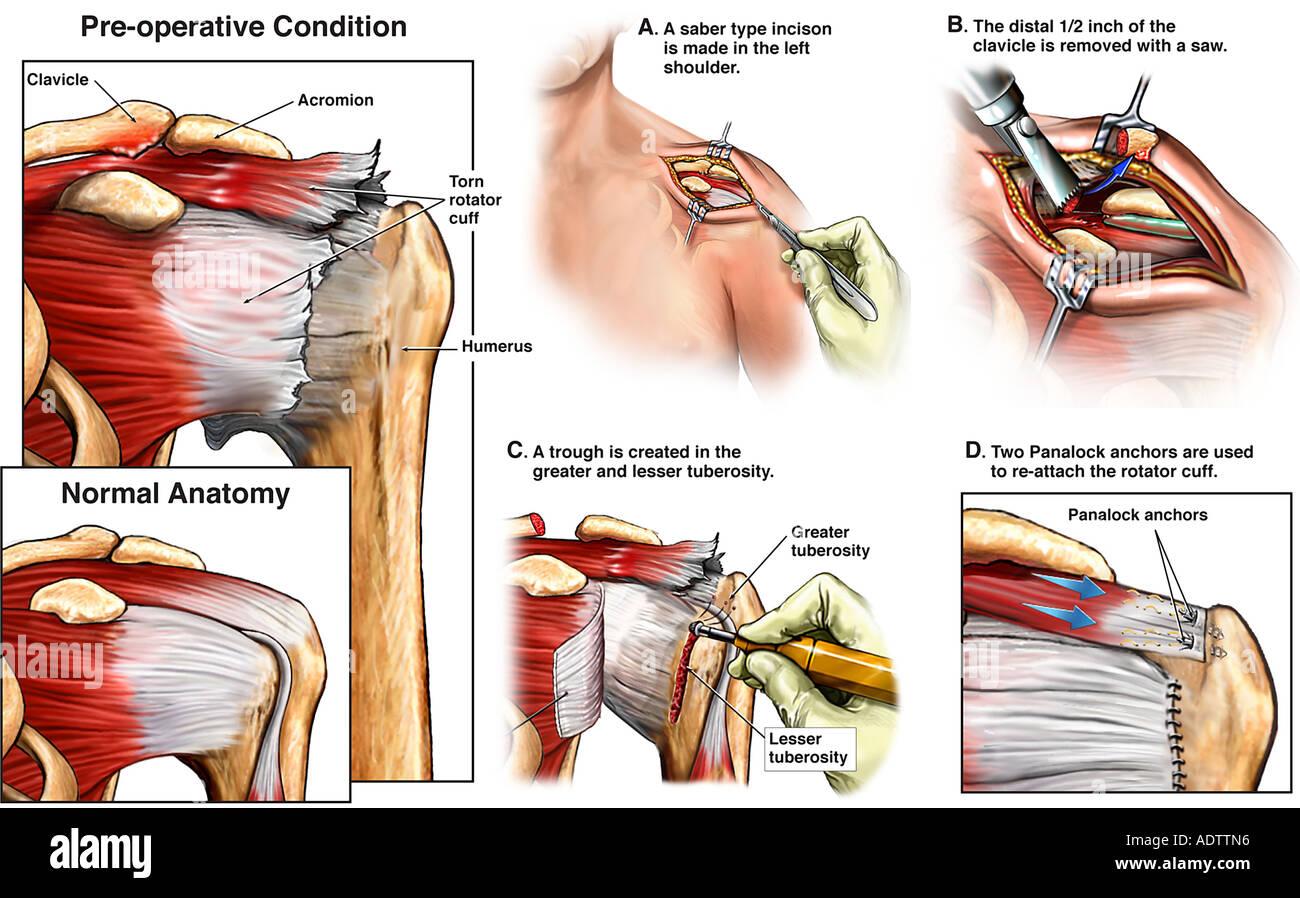 Sinistra traumatica della cuffia dei rotatori strappare con le riparazioni  chirurgiche Immagini Stock c2230539f0ae