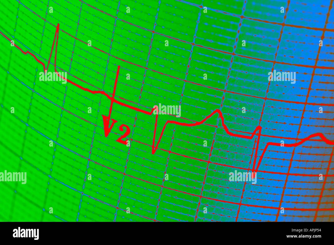 Elettrocardiogramma ECG closeup concetto vista Immagini Stock
