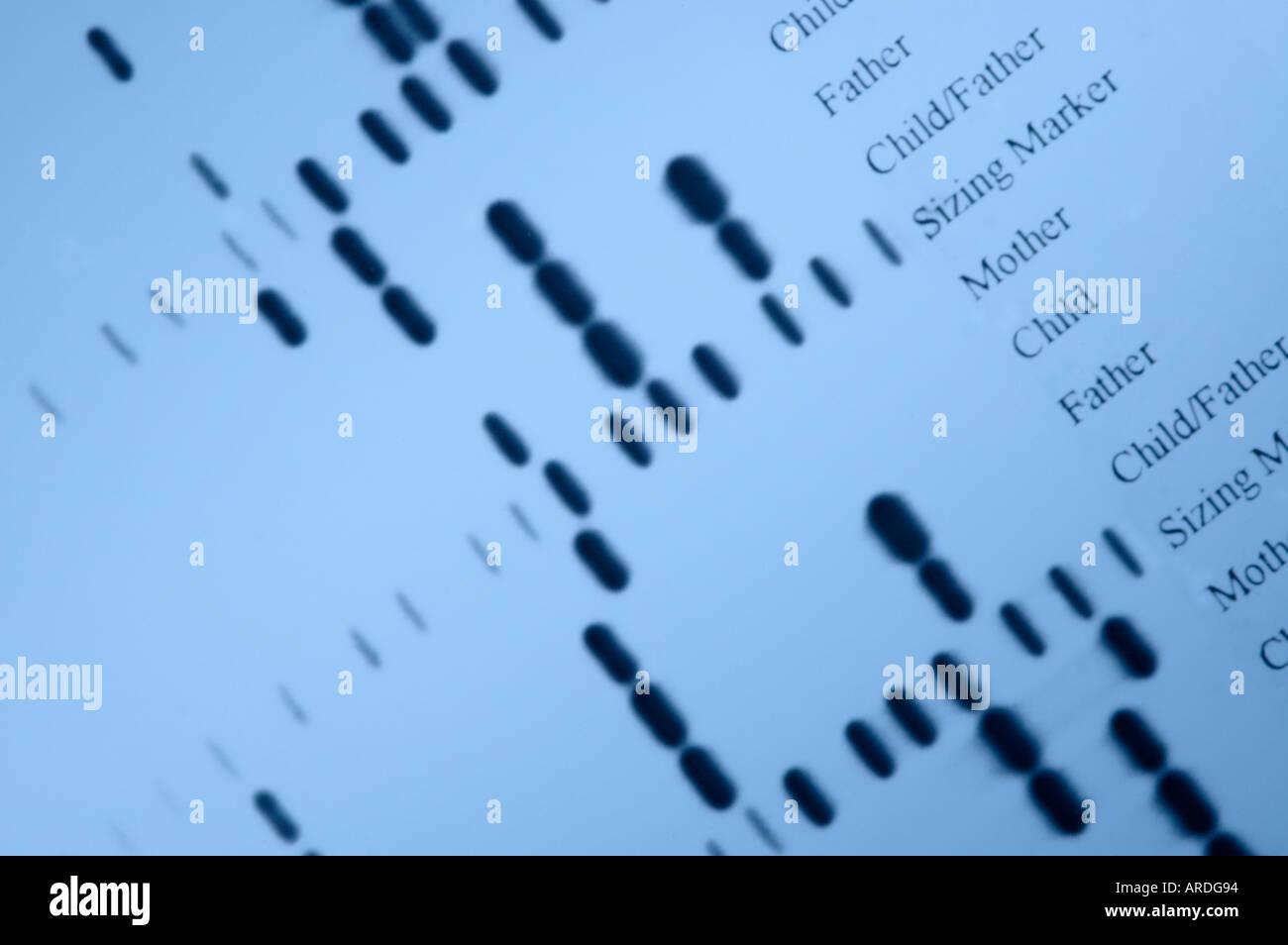 Autoradiografia del 'DNA impronte digitali' dalla determinazione di paternità indagini Immagini Stock