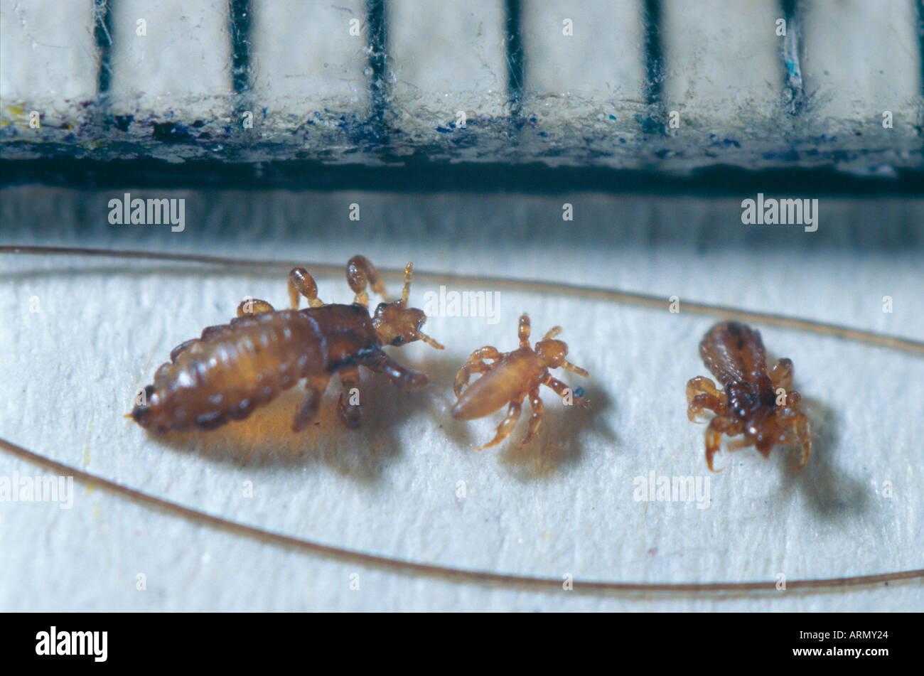 Testa (pidocchio Pediculus capitis, Pediculus humanus capitis), imago tra i capelli umani. Foto Stock