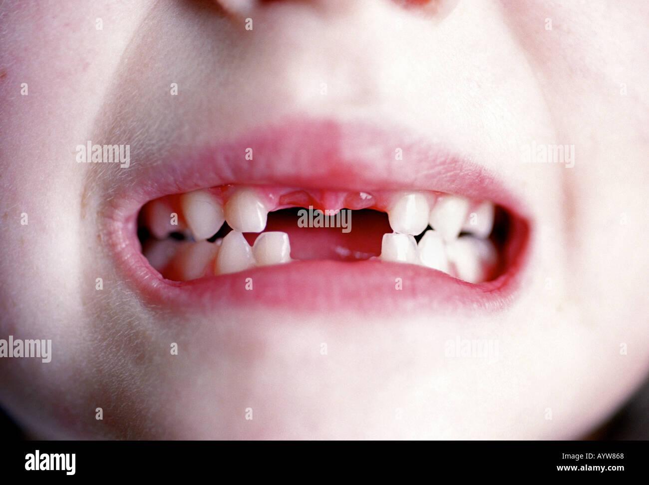 Una giovane ragazza che mostra la sua anteriore mancanti due denti superiori e inferiori Foto Stock