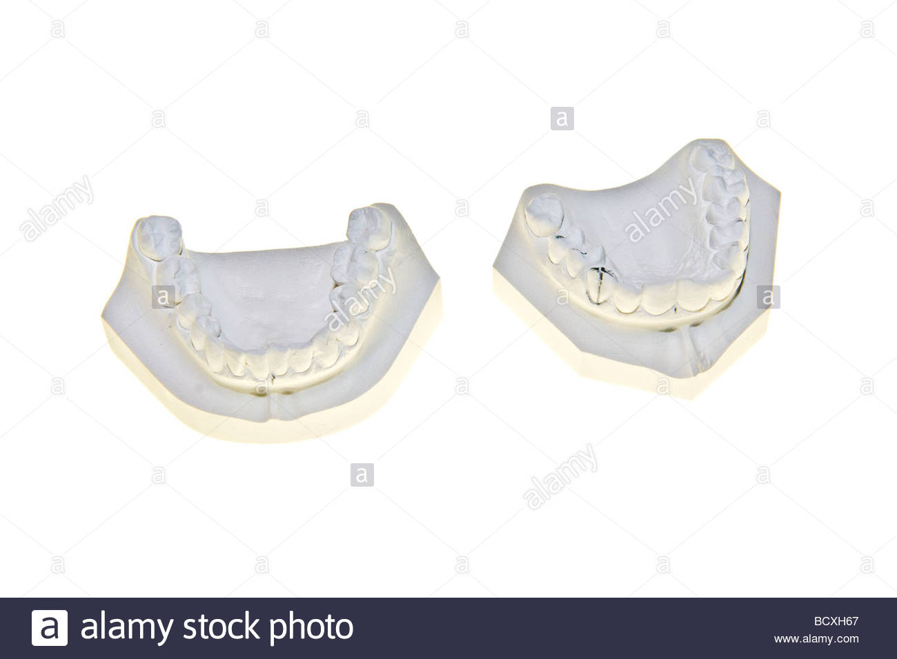 muffa dentale Immagini Stock