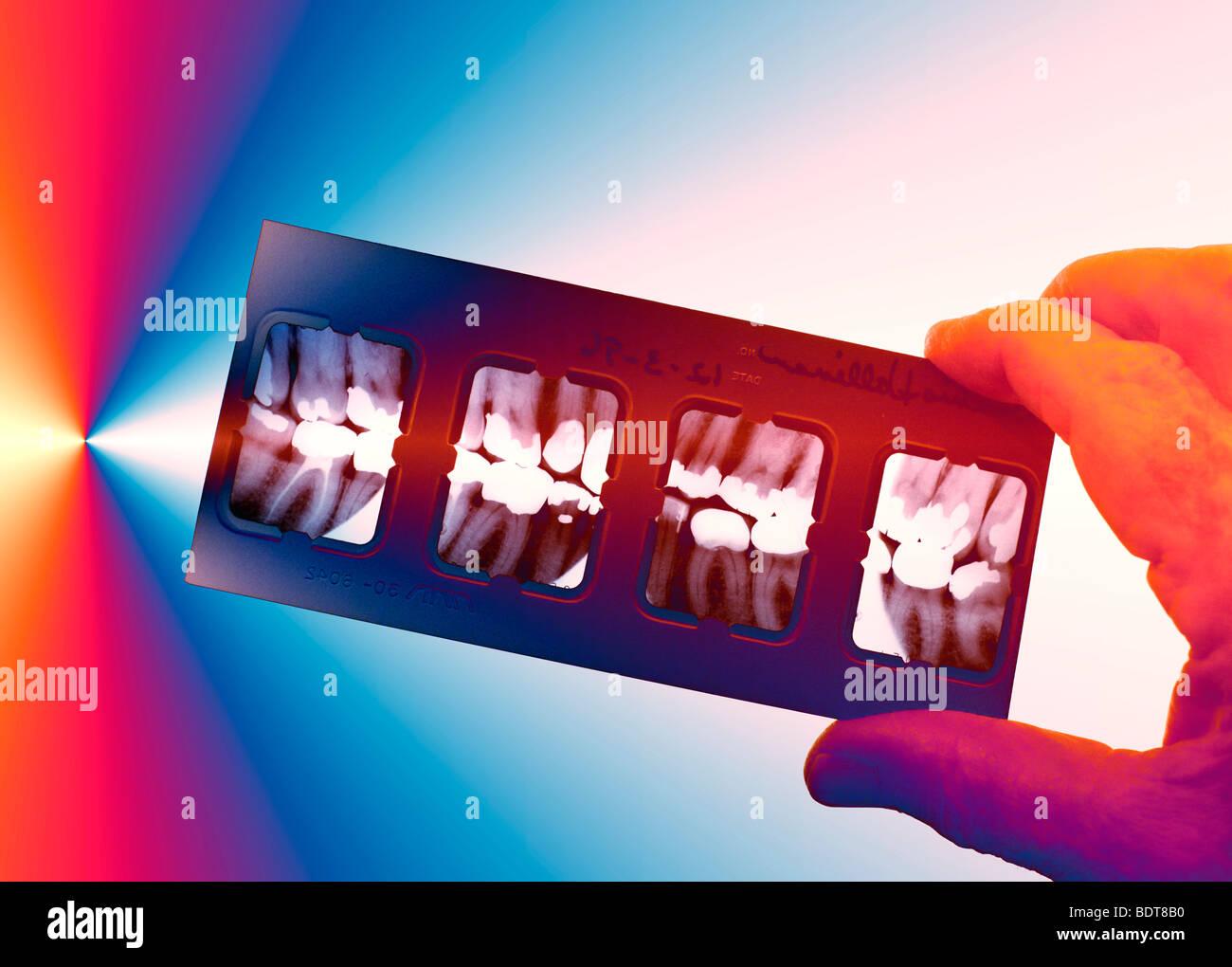 Operatore medico azienda apparecchiature odontoiatriche a raggi X Immagini Stock
