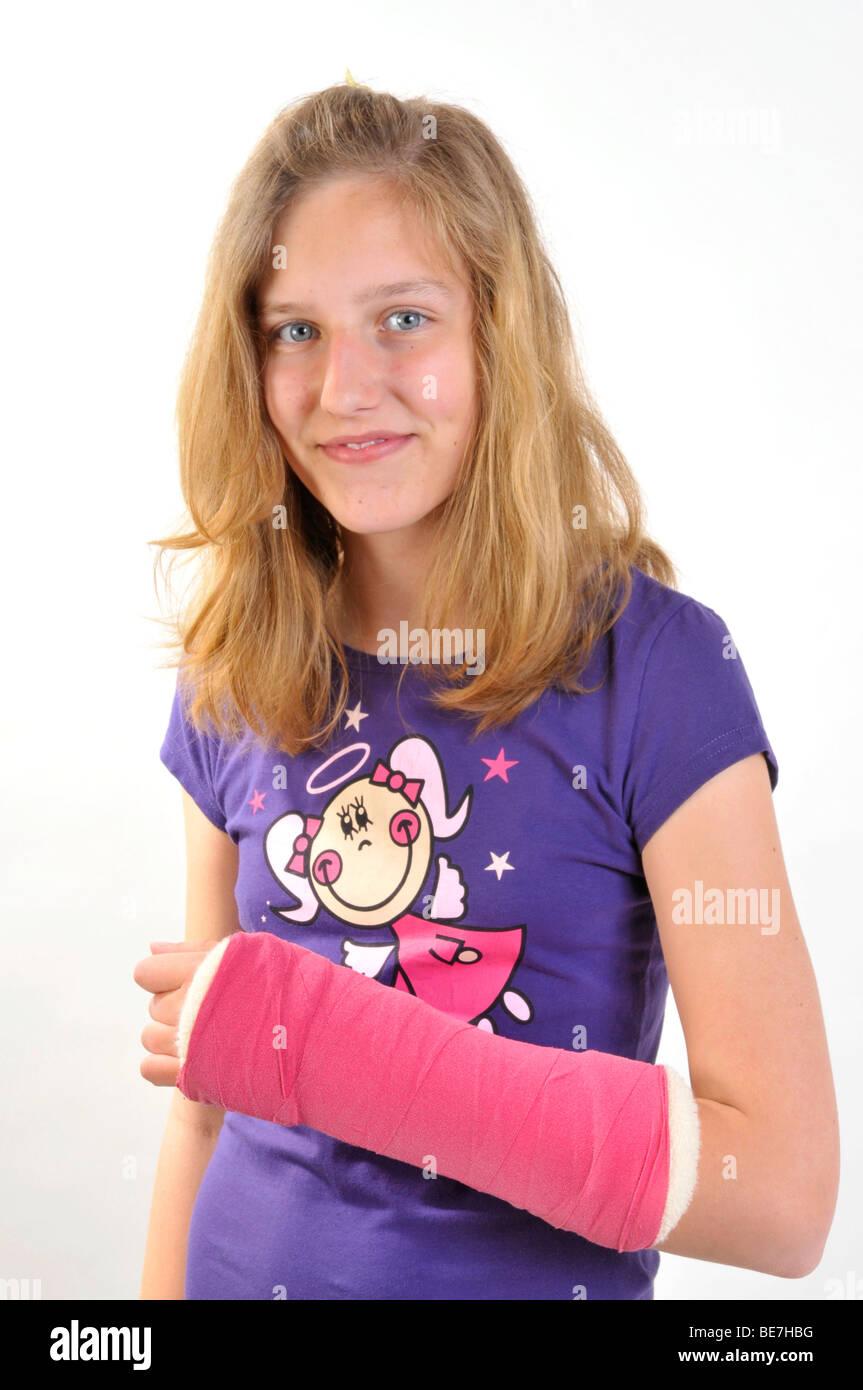 Ragazza con il cast su un braccio rotto Foto Stock