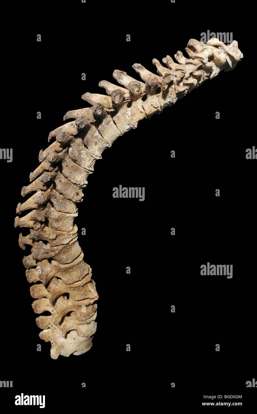 Cifosi, anormale curvatura della colonna vertebrale, eventualmente causati da rachitismo. Risultati in un gobbo Immagini Stock