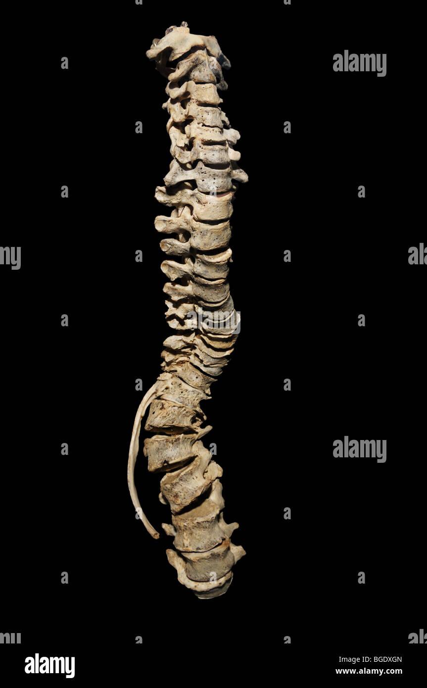 La scoliosi, la curvatura della colonna vertebrale Immagini Stock