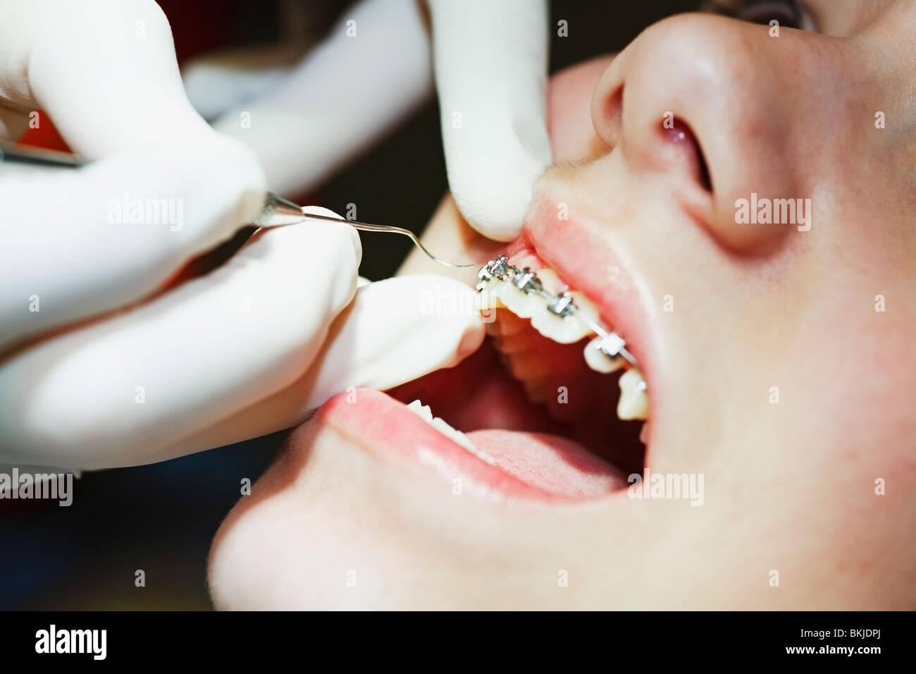 Un adolescente con bretelle aventi la loro bocca esaminata dal dentista Immagini Stock