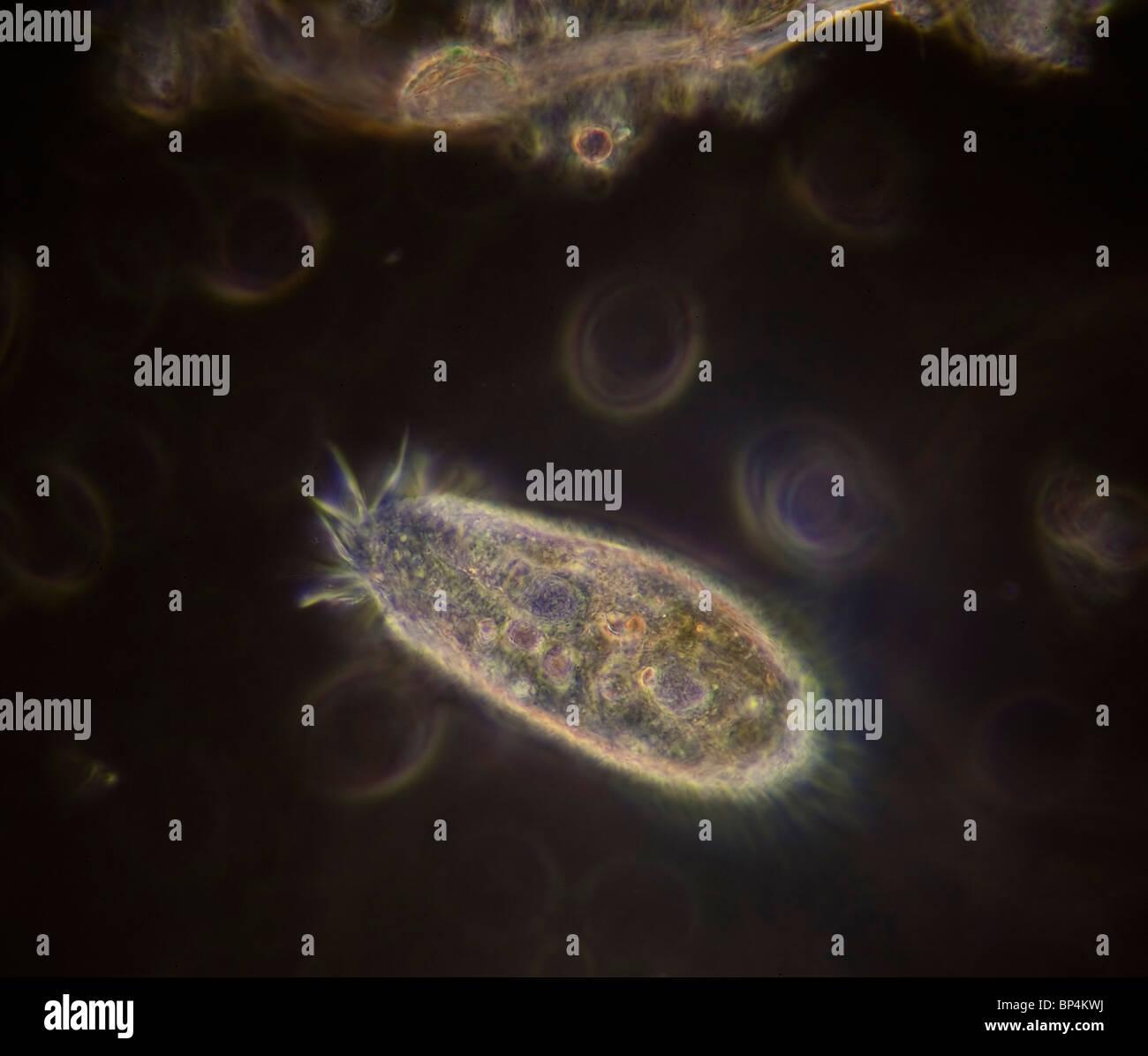 Campo oscuro / contrasto fase microfotografia di una Hypotrich, un nuoto veloce ciliato, in un campione di acqua Immagini Stock