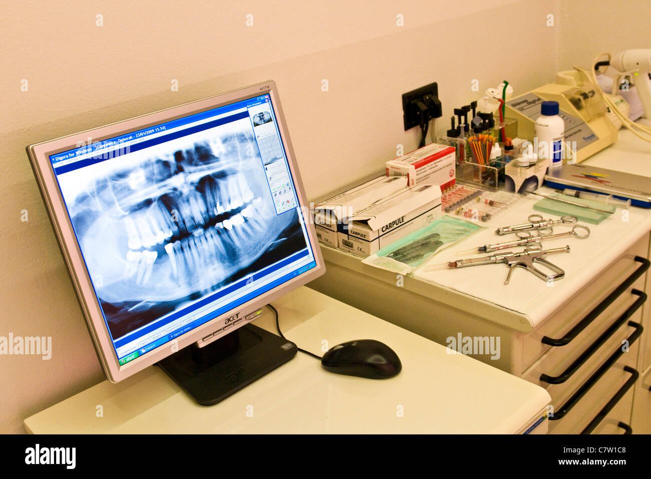X-ray della ganascia con strumenti dentali Immagini Stock