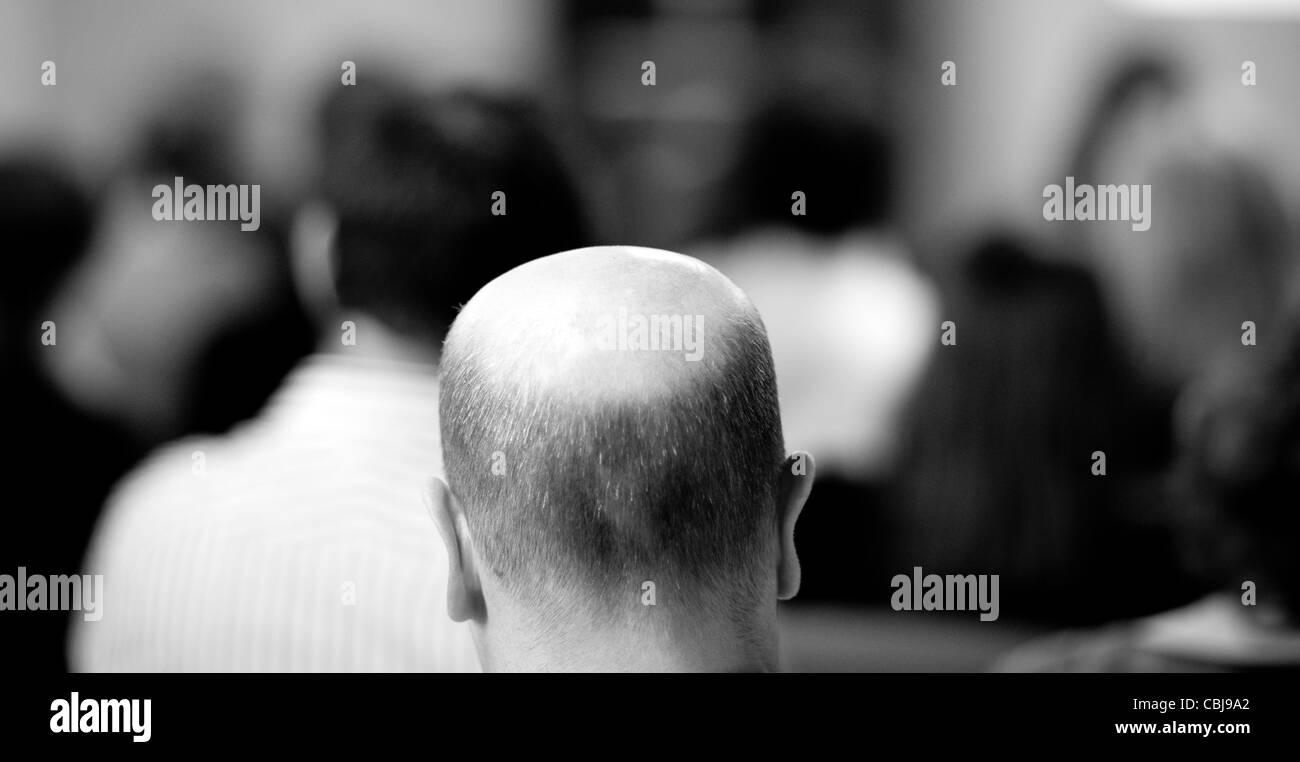 Vista del retro di un uomo calvo la testa che mostra una linea di demarcazione in recessione. Immagini Stock