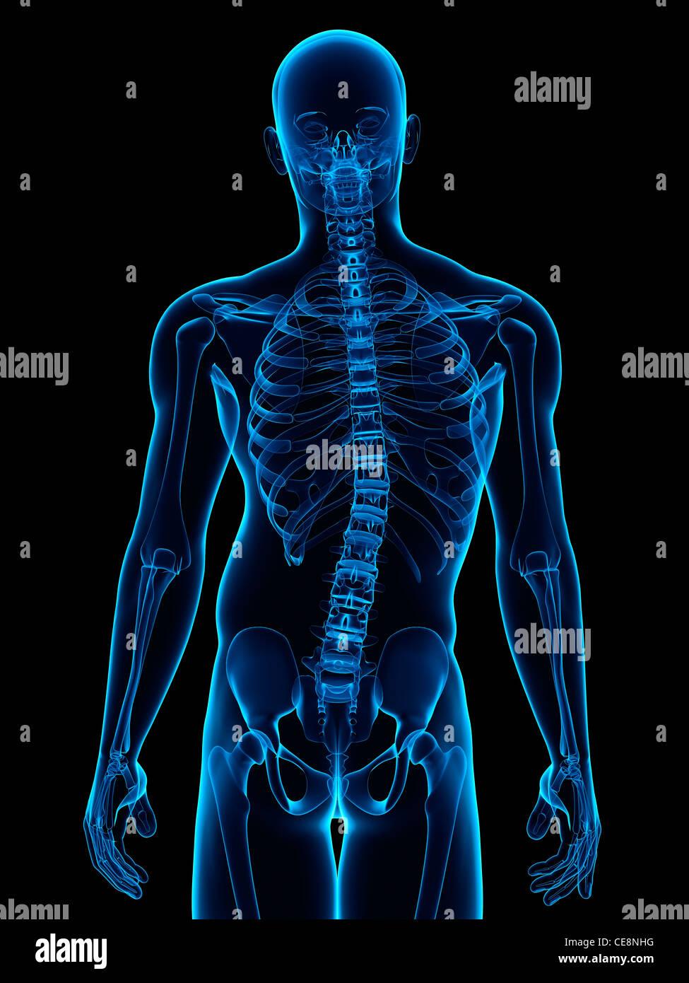 La scoliosi. Computer grafica di un uomo con una curvatura laterale (scoliosi) della colonna vertebrale. Immagini Stock