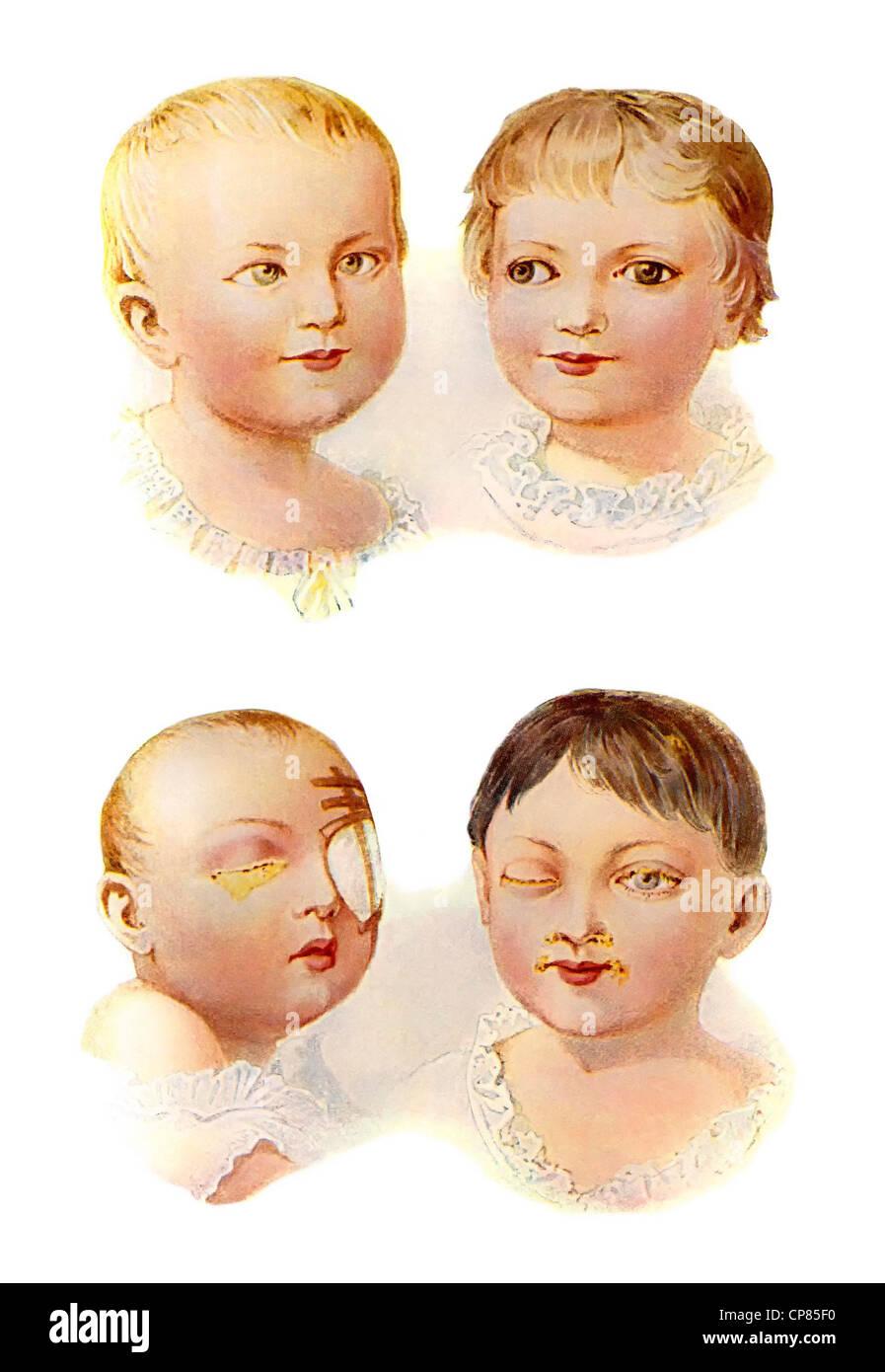 Immagini da un libro di medici, bambini di malattie dell'occhio, Darstellungen aus einem medizinischen Buch, Immagini Stock