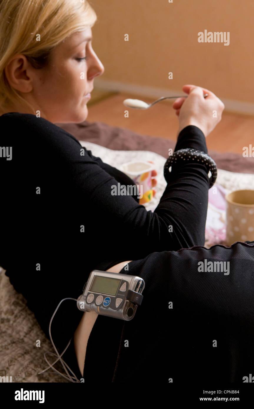 Pompa per insulina esterna Immagini Stock