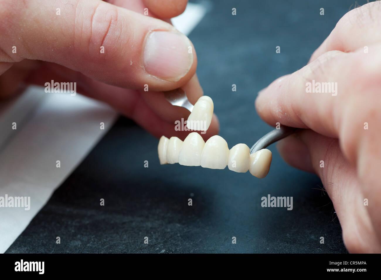 Confronto del colore delle corone dentali Immagini Stock