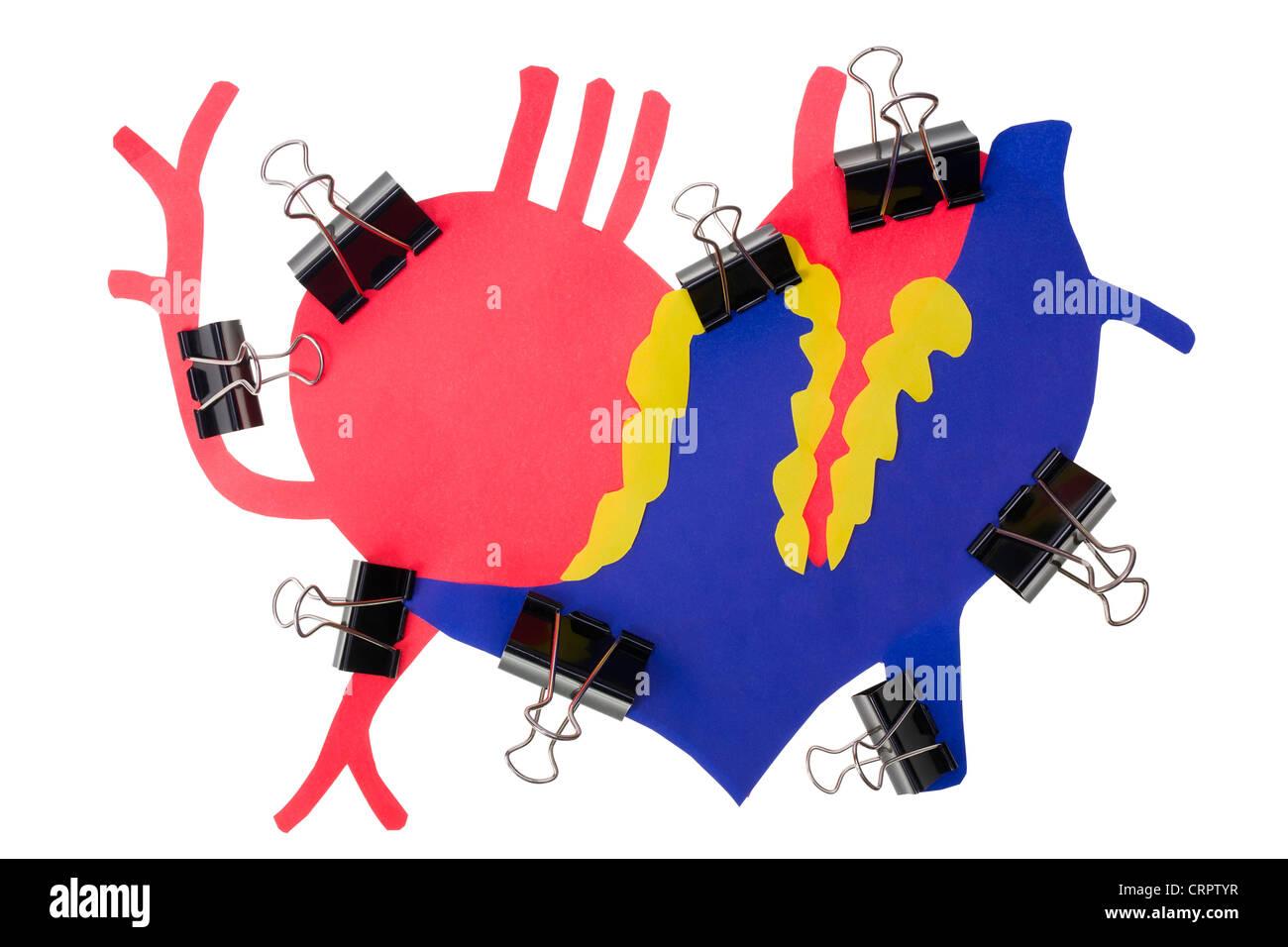 Infarto miocardico concetto del cuore umano. Un attacco di cuore. Cuore di carta colorata con una superficie ruvida è compressa st Foto Stock