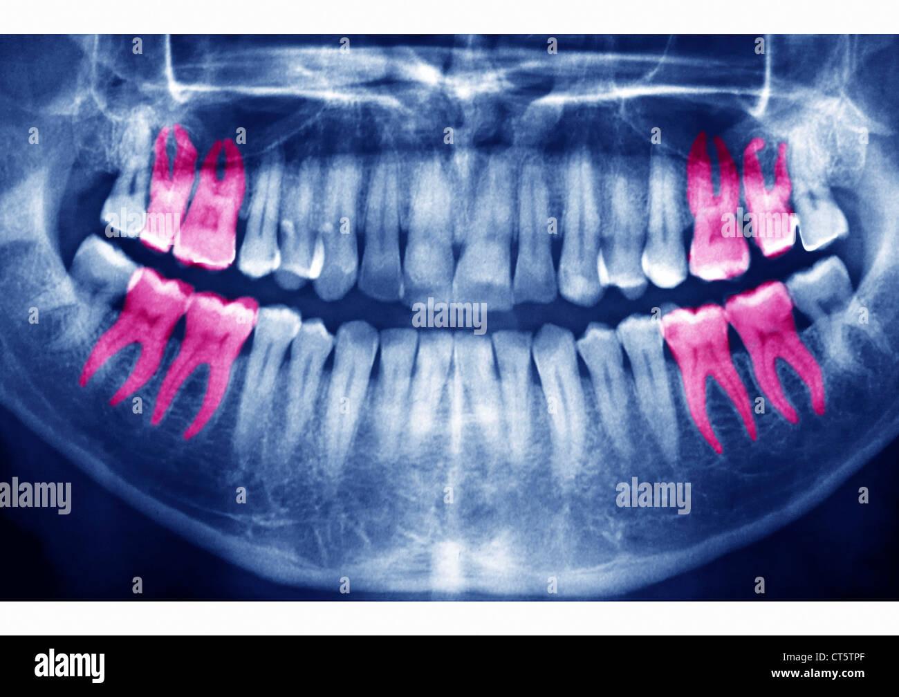 Apparecchiature odontoiatriche a raggi X e risultato Immagini Stock