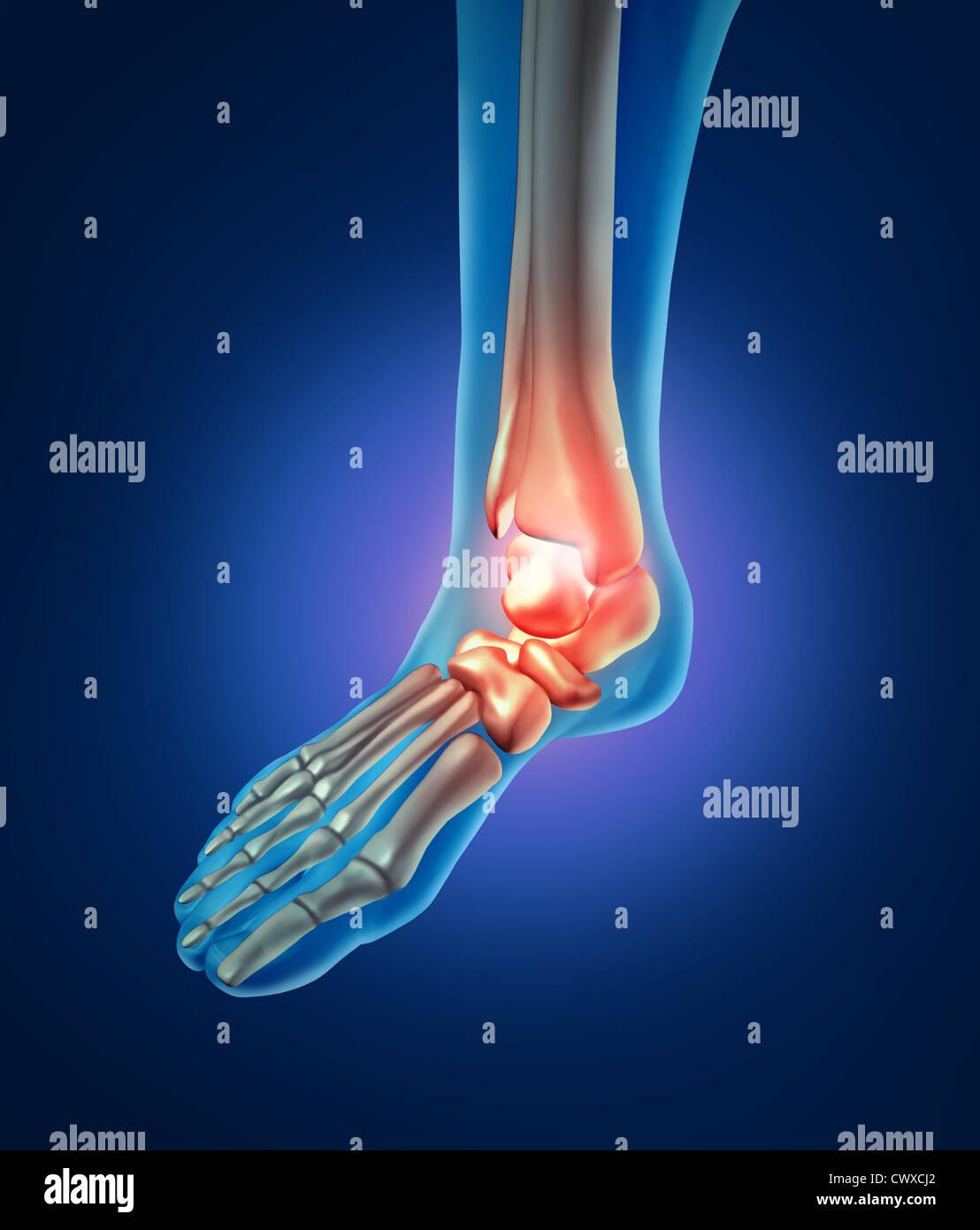 Il dolore del piede con uno scheletro del corpo a piedi parte con le ossa in rosso dove trhere è infiammazione della caviglia che ha un giunto orthoedic pregiudizio causato y bad scarpe o esecuzione di incidente. Foto Stock