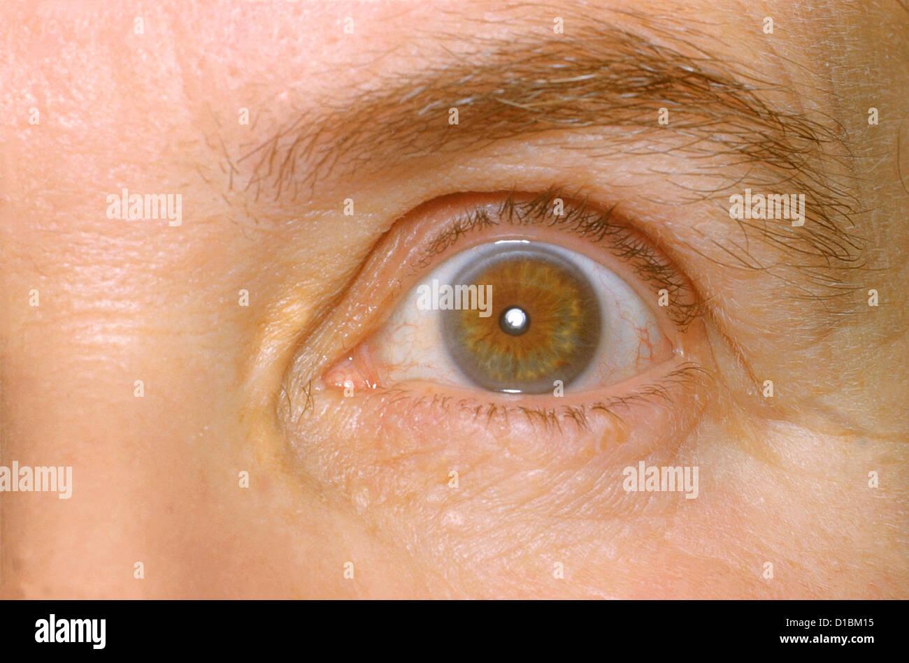 Ipercolesterolemia familiare Foto Stock
