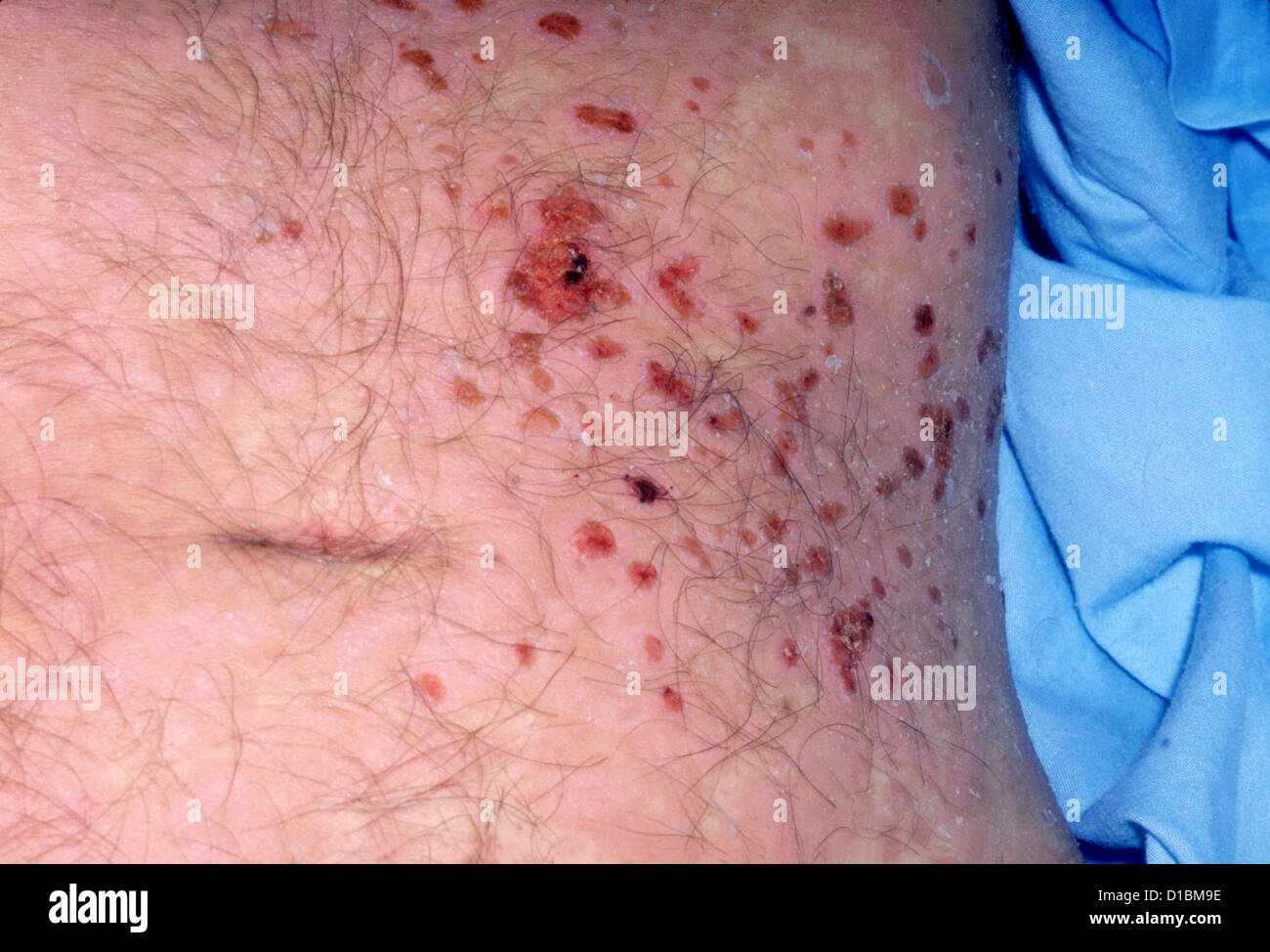 HERPES ZOSTER Foto Stock