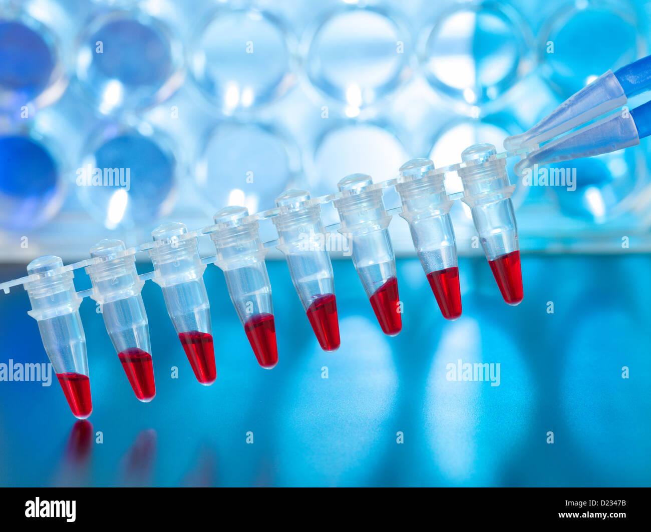 I campioni di sangue per identificare la paternità utilizzando DNA Immagini Stock