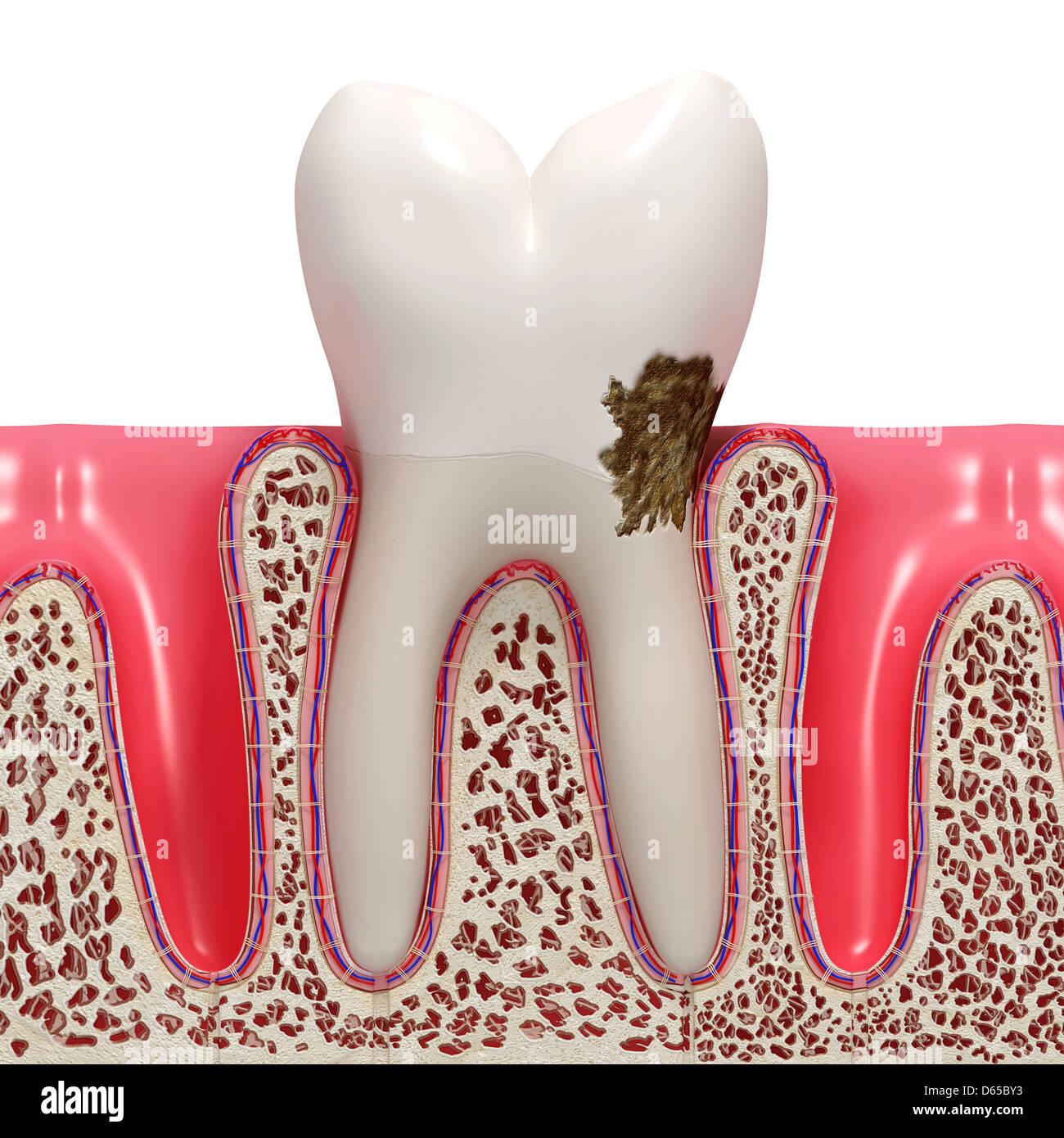 La placca dentale, artwork Foto Stock
