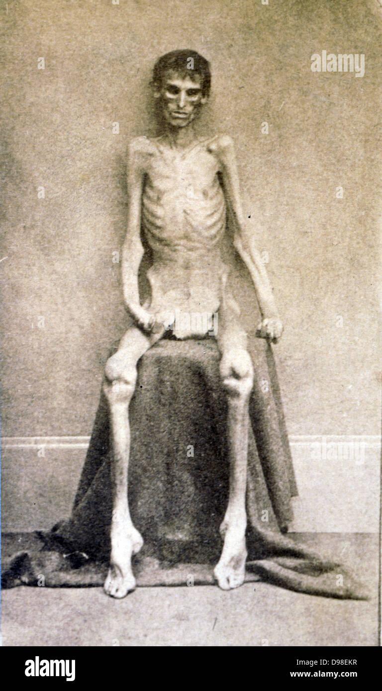 Un prigioniero federale, restituito dal carcere Guerra civile americana c 1865 Immagini Stock