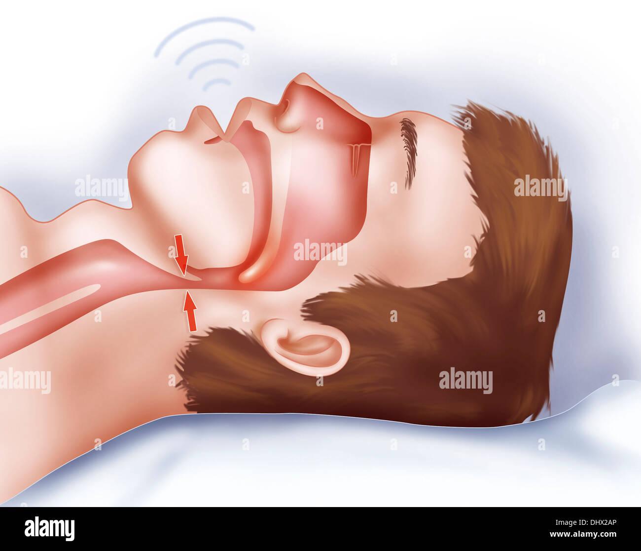 Sindrome da apnea nel sonno Immagini Stock