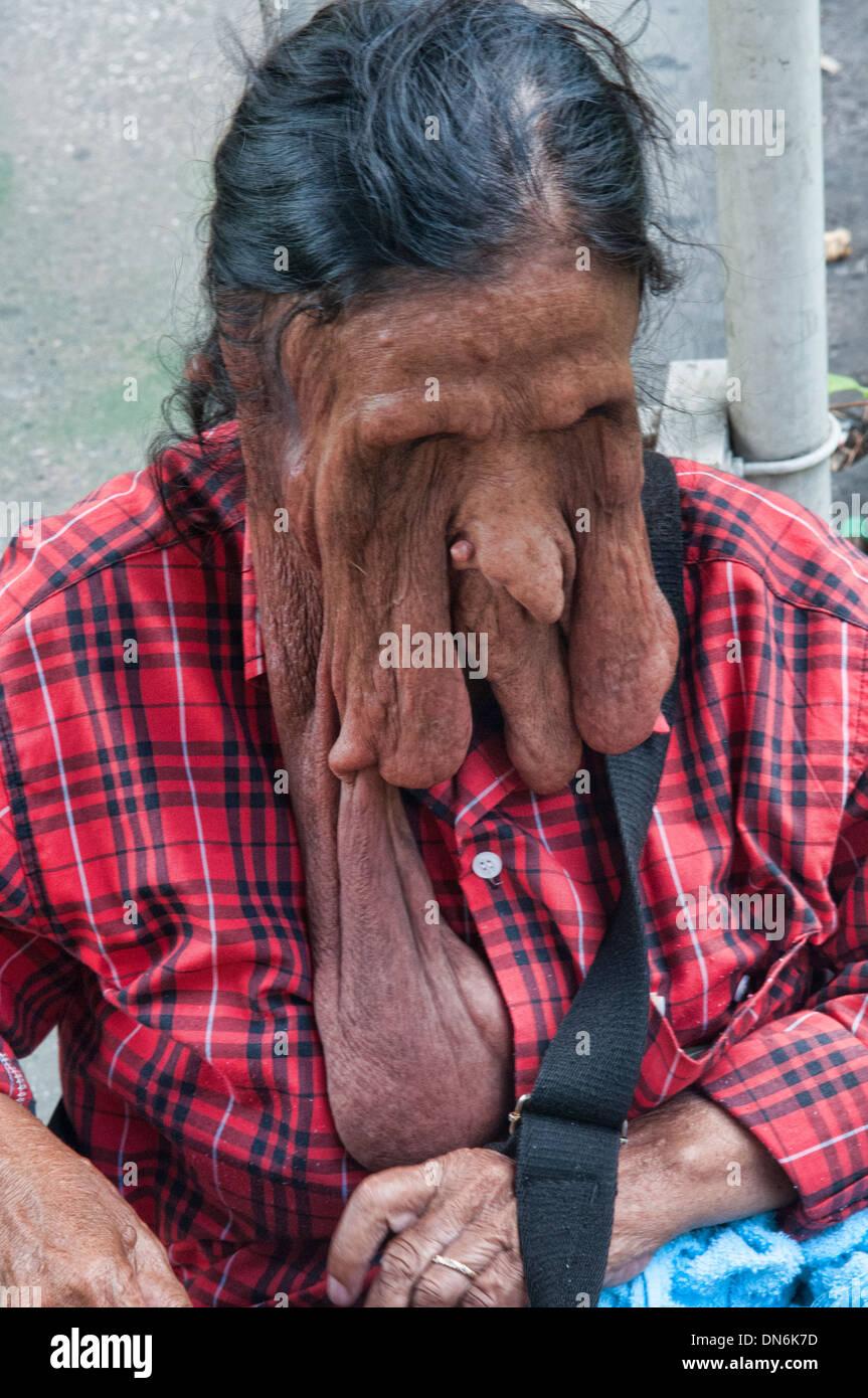 Beggar con elephantiasis a Bangkok, in Thailandia Immagini Stock