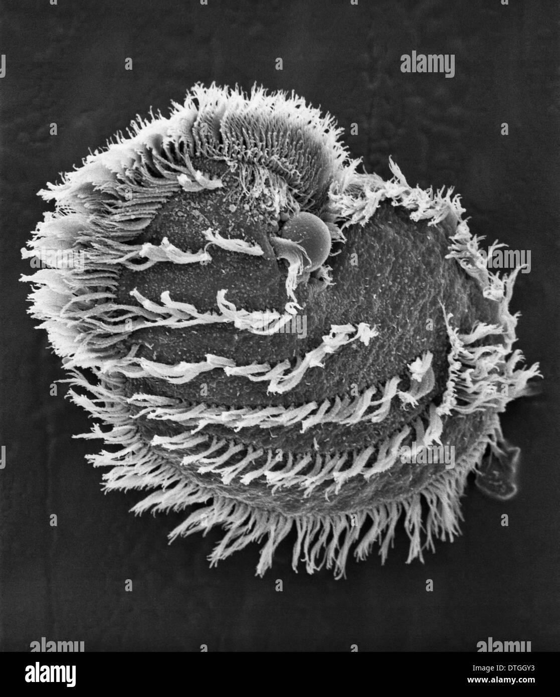 Ciliato plancton Immagini Stock