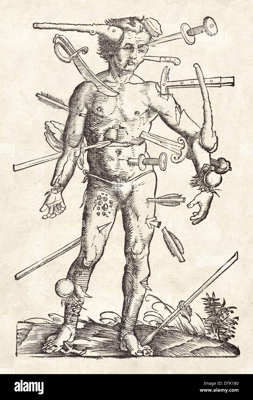 Uomo avvolto xilografia attribuito a Hans Wechtlin dal chirurgo tedesco Hans von Gersdorff del libro del campo della Immagini Stock