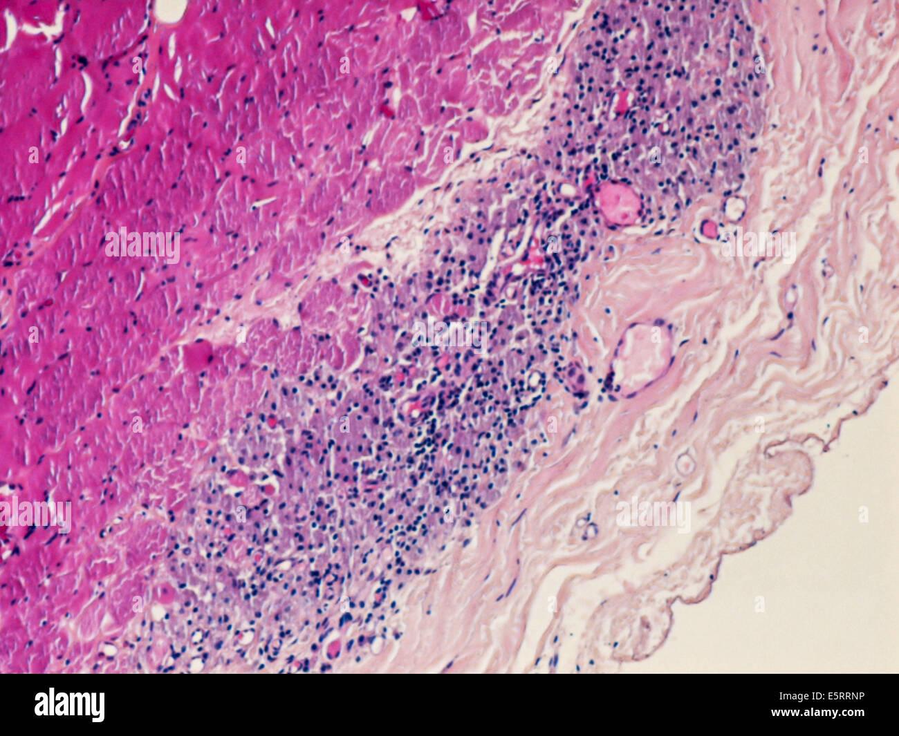 Micrografia di luce di una sezione attraverso il tessuto da un muscolo deltoide biopsia che mostra un macrophagic myofasciitis post-vaccinazione. Foto Stock