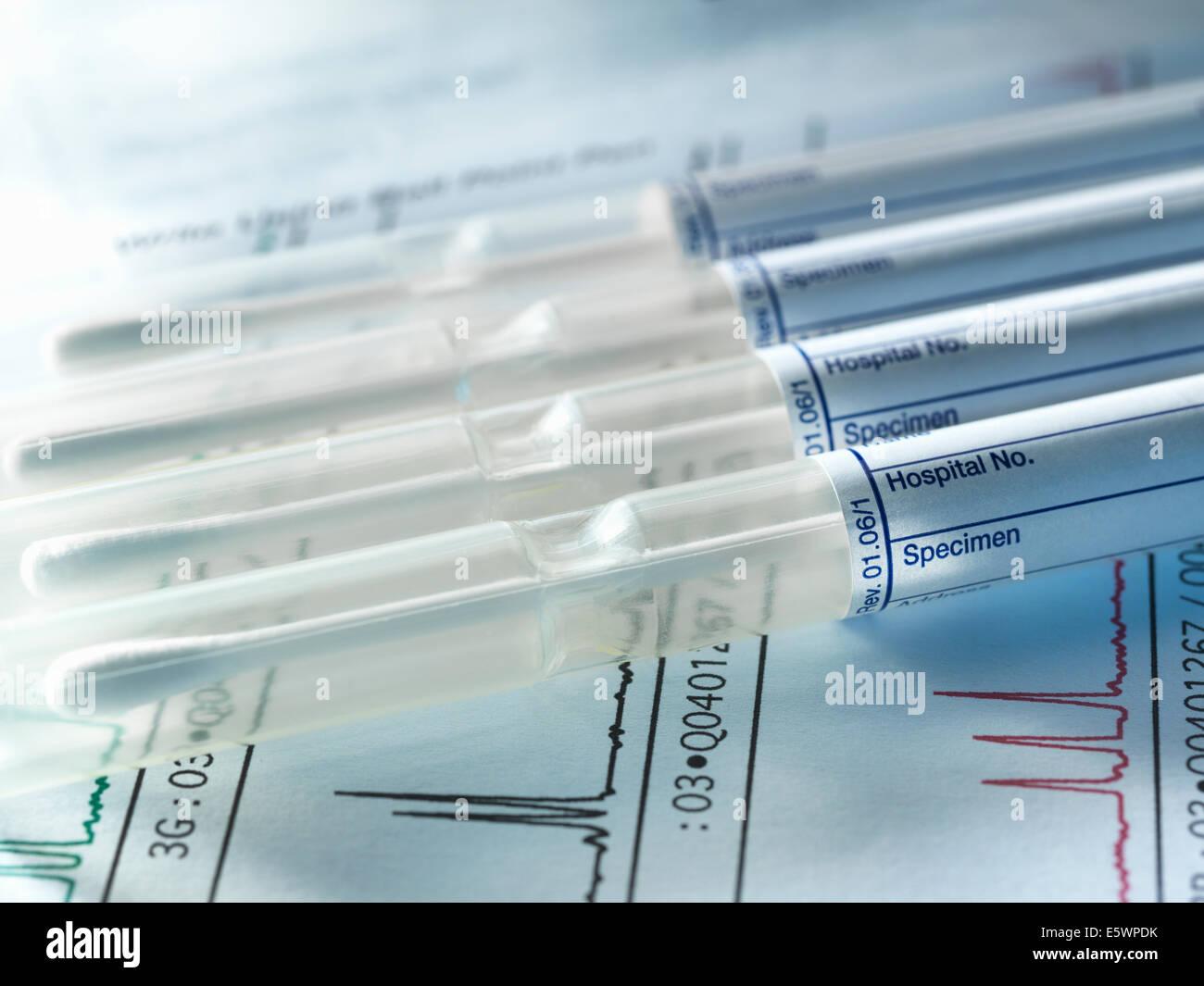 Una fila di campioni di DNA da membri della famiglia essendo geneticamente testati per il congedo di paternità Immagini Stock