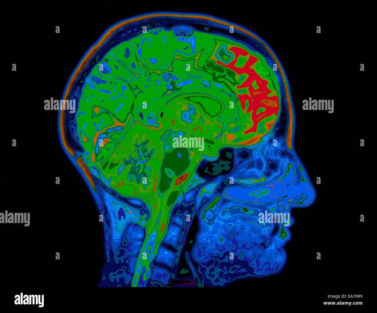 Immagine MRI della testa che mostra il cervello Immagini Stock