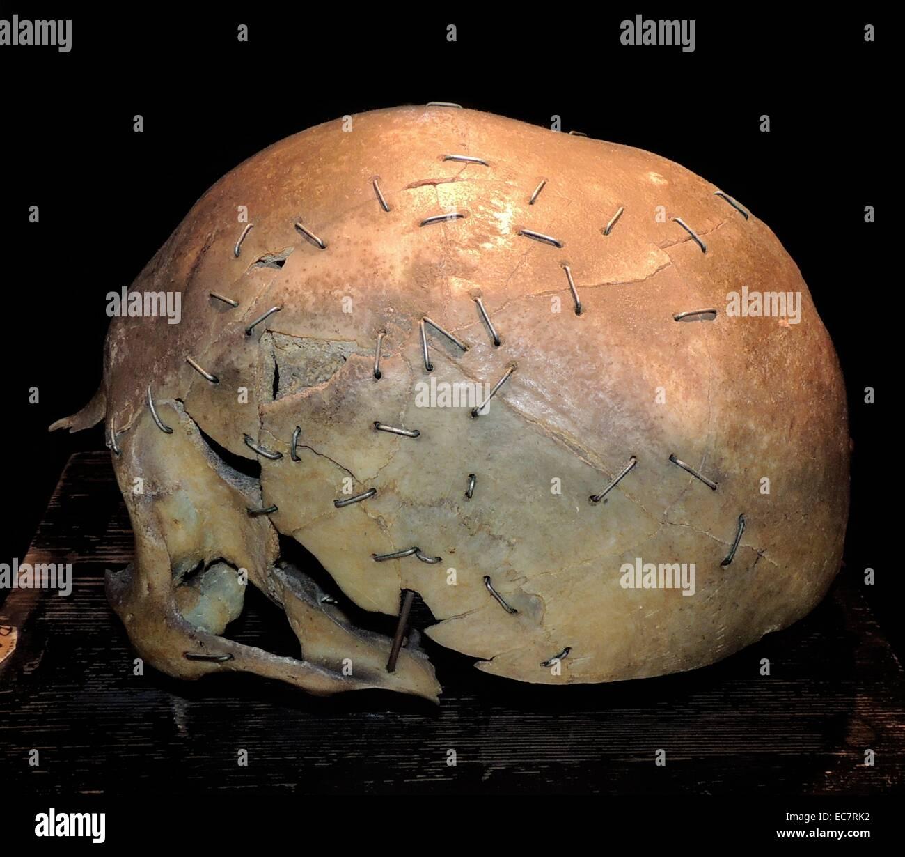 Cranio con lesioni principali. Situato presso la collezione storica, Istituto di Patologia dell'Università Immagini Stock