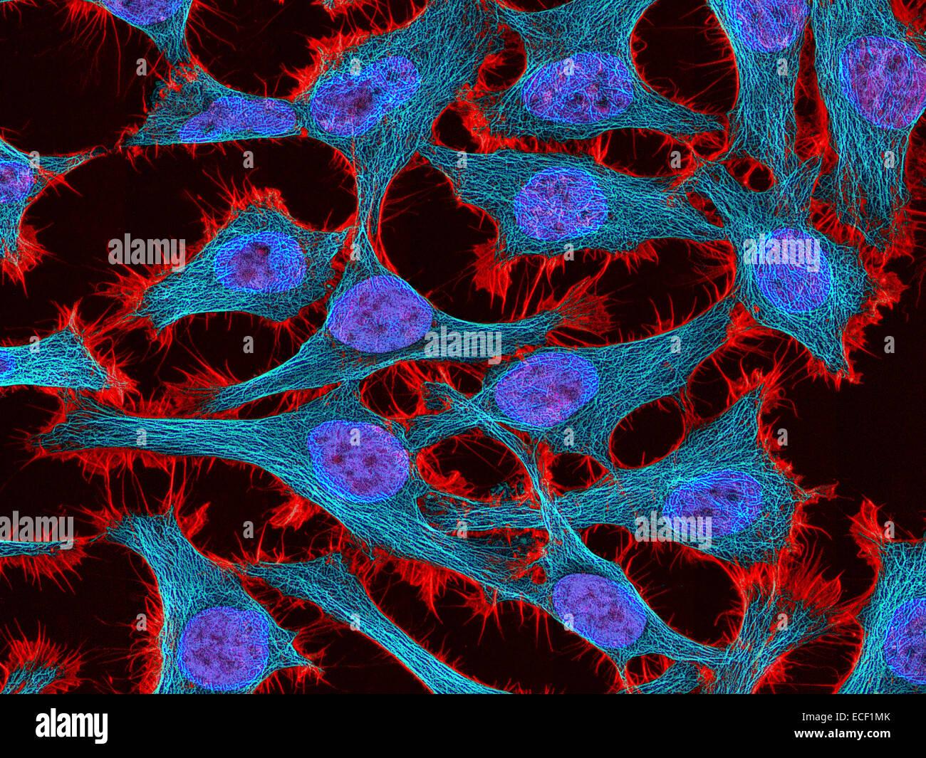 Multifotone immagine di fluorescenza di cellule HeLa macchiato di legame di actina phalloidin tossina (rosso), microtubuli Immagini Stock