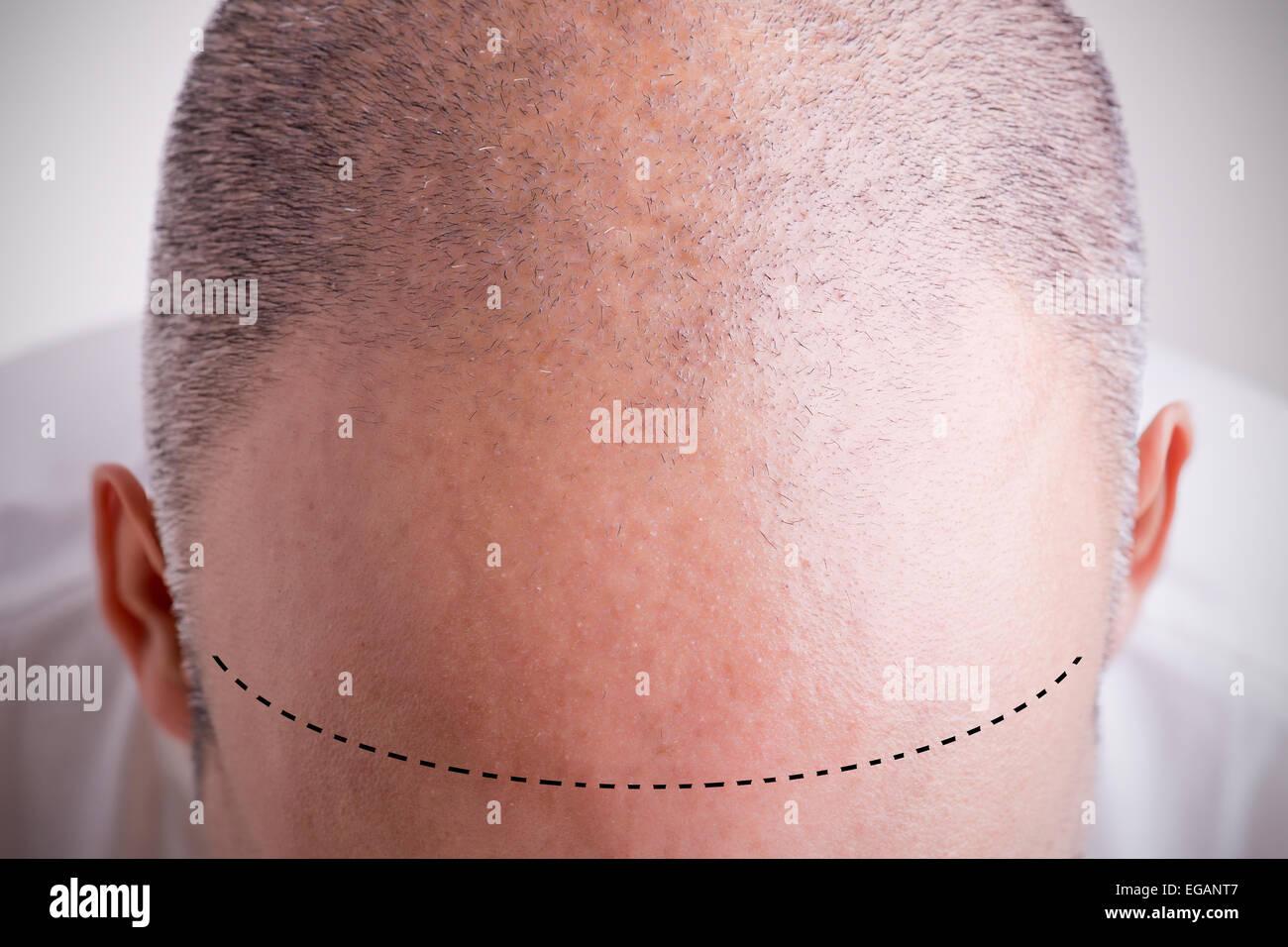 Vista dall'alto di uno degli uomini del capo con una sfuggente linea capelli con una netta linea di demarcazione Immagini Stock