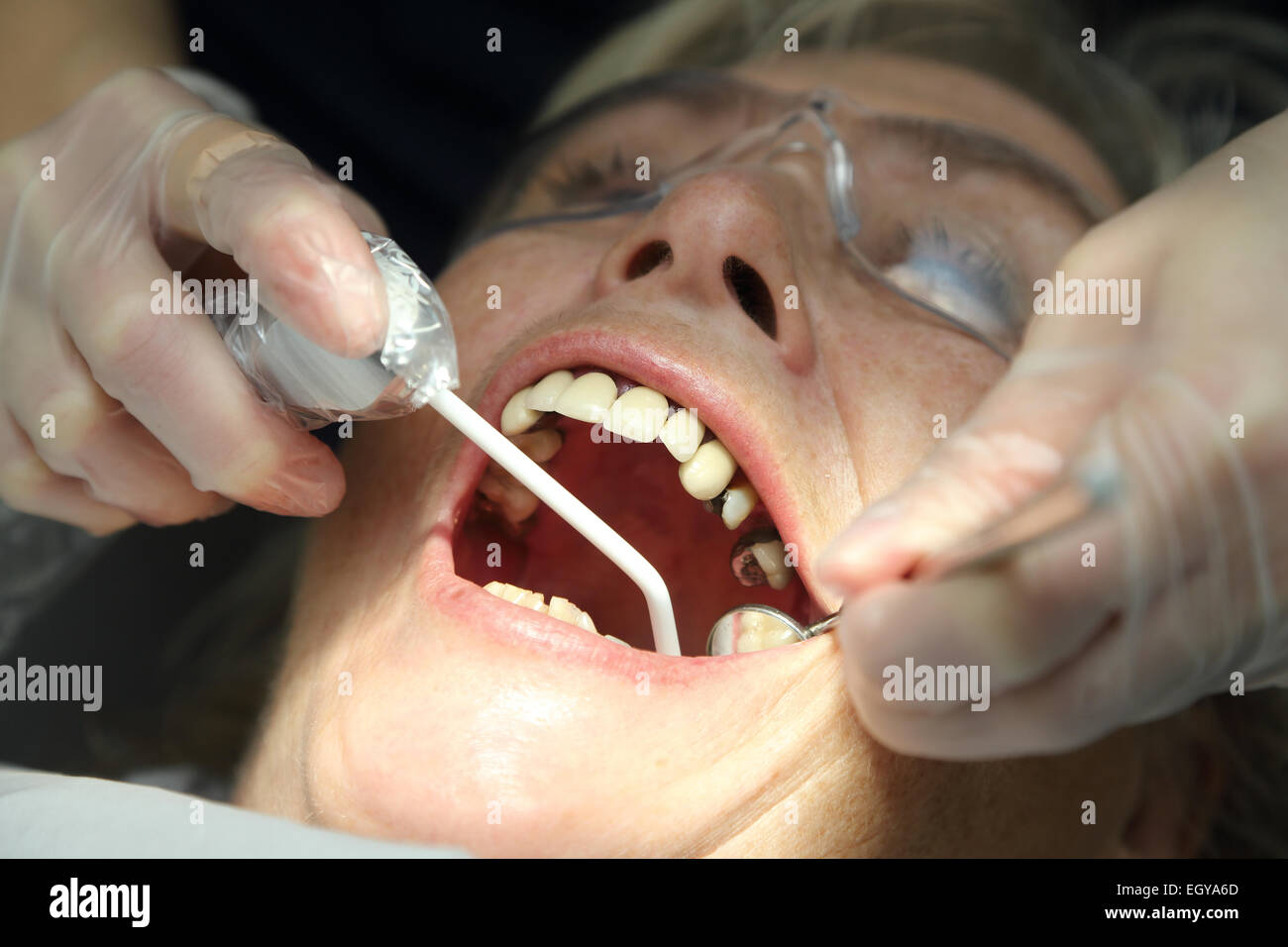 Donna al dentista - modello rilasciato Immagini Stock