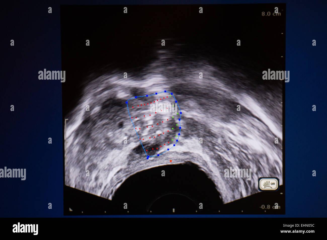 Il trattamento del cancro della prostata da alta intensità di messa a fuoco (ultrasuoni Focal-One). Institut Immagini Stock