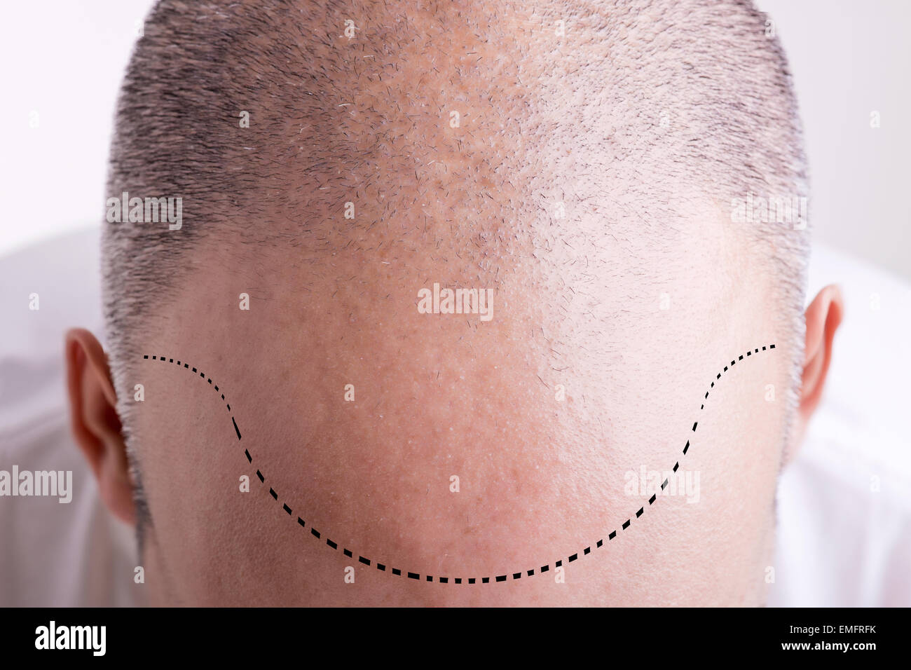 Vista dall'alto di uno degli uomini del capo con una sfuggente Linea capelli Immagini Stock