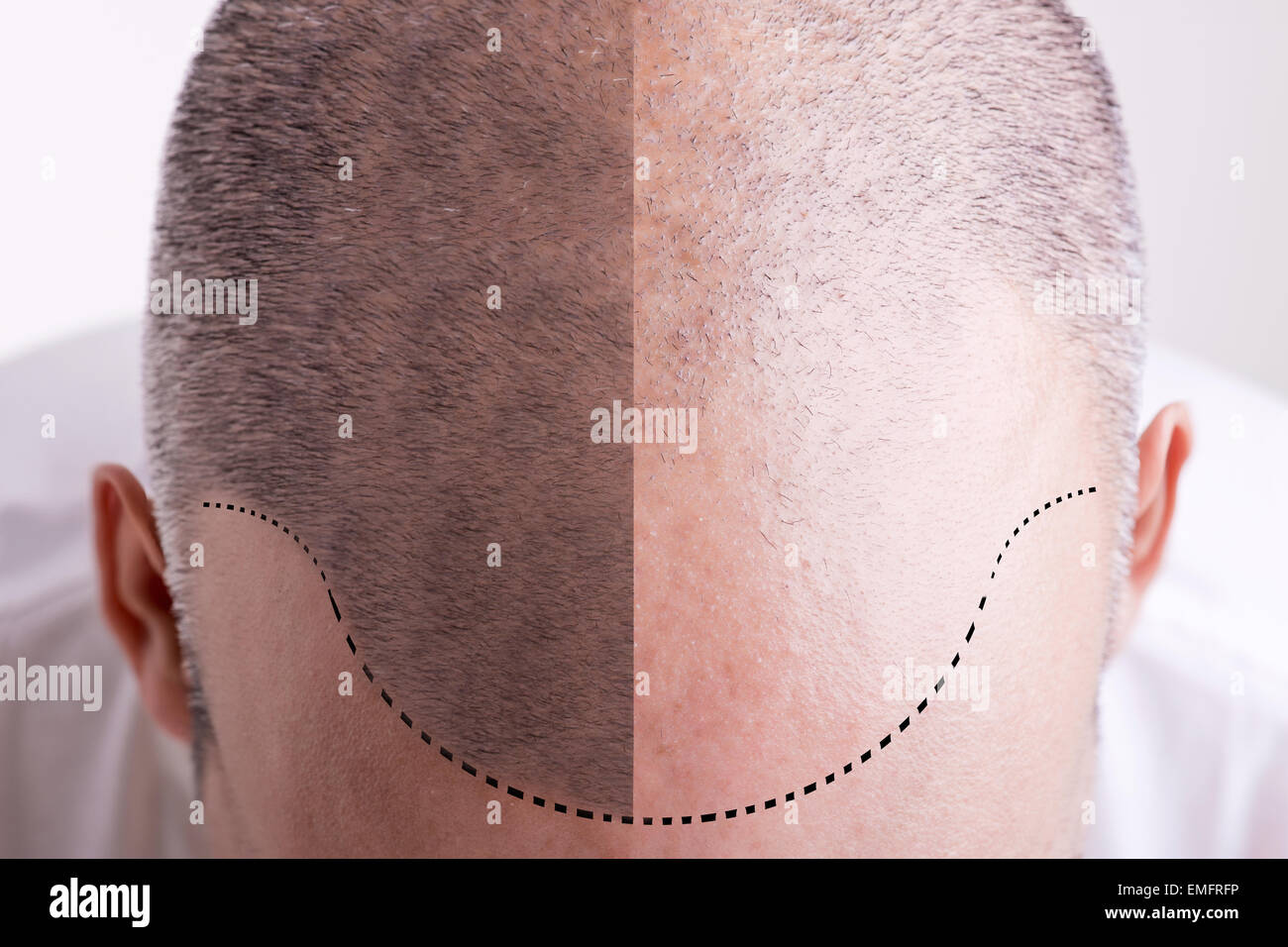 Vista dall'alto di uno degli uomini del capo con una sfuggente Linea capelli - Prima e Dopo Immagini Stock
