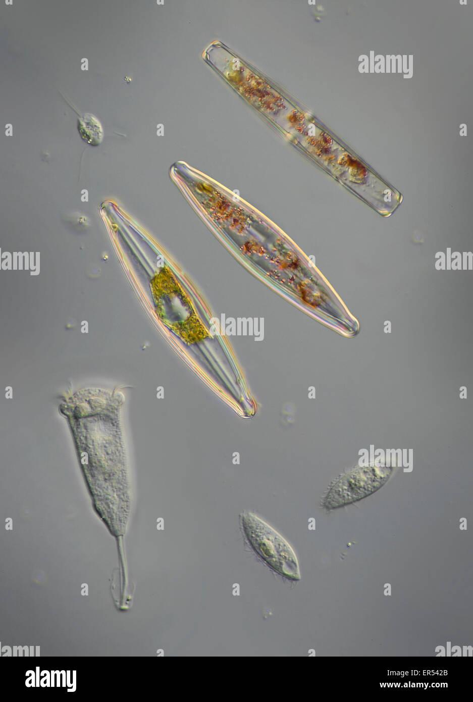 Una varietà di pondlife, diatomee. protozoi, scuticociliates, un peritrich ciliato -- probabilmente vorticelle, Immagini Stock