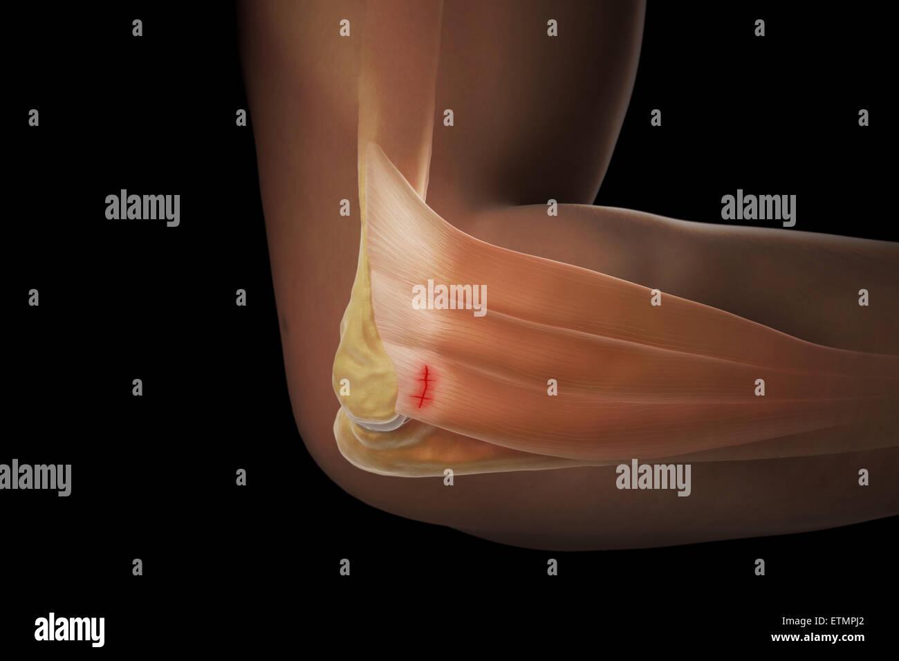 Illustrazione del braccio con la pelle trasparente per mostrare lesioni al laterale tendine epicondyle, noto come Immagini Stock