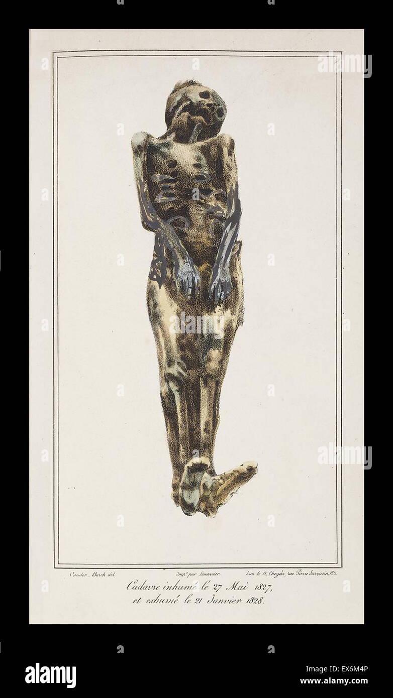 Studi degli effetti di decomposizione su esumato corpi, 1831 Immagini Stock