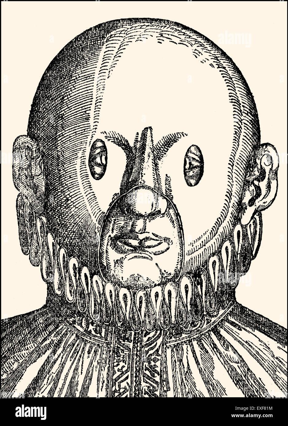 Il trattamento dell'occhio, strabismo, occhi incrociati, Georg Bartisch, Ophthalmodouleia, 1583, Immagini Stock