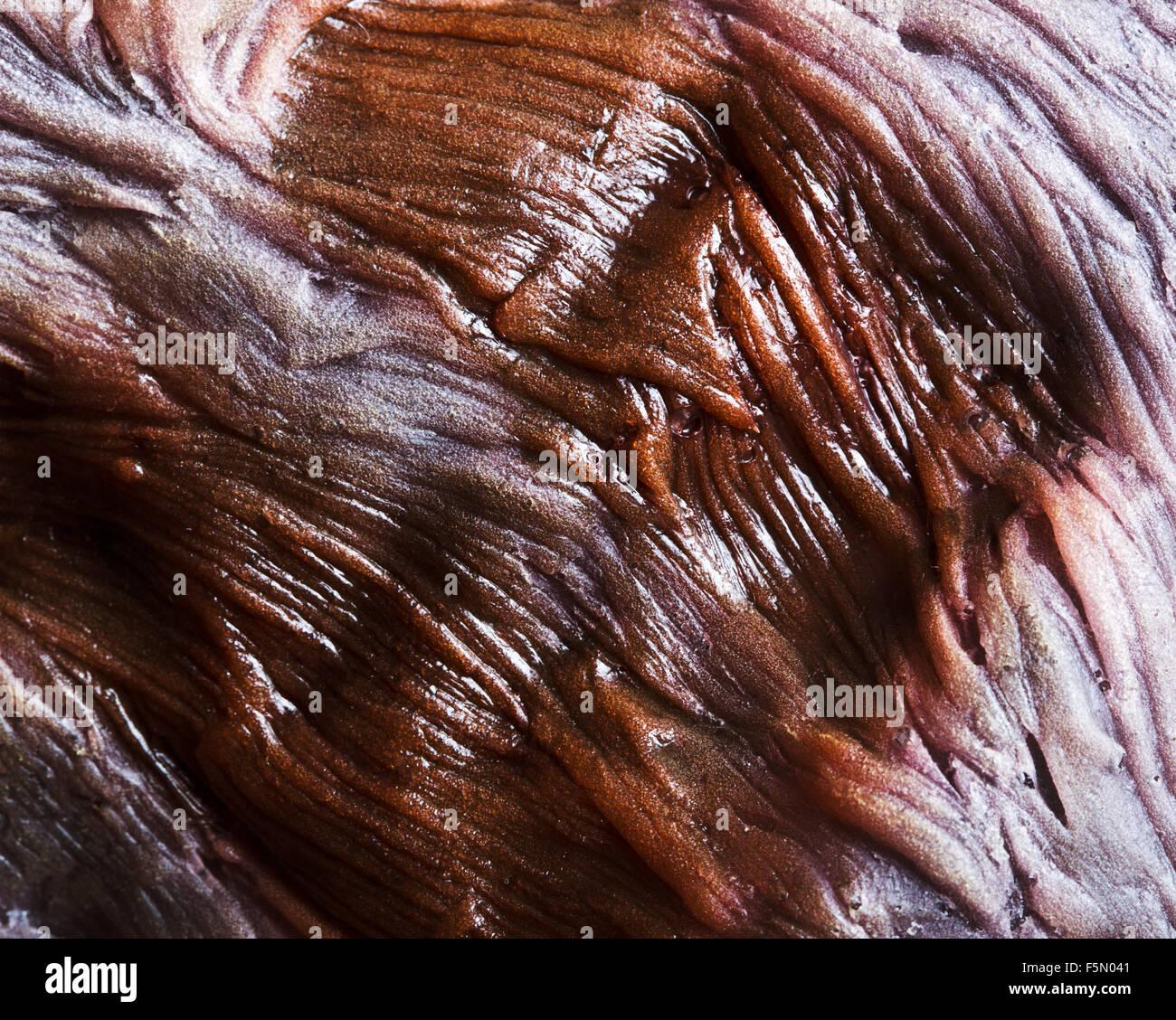 Close-up di bruciare la pelle umana Immagini Stock